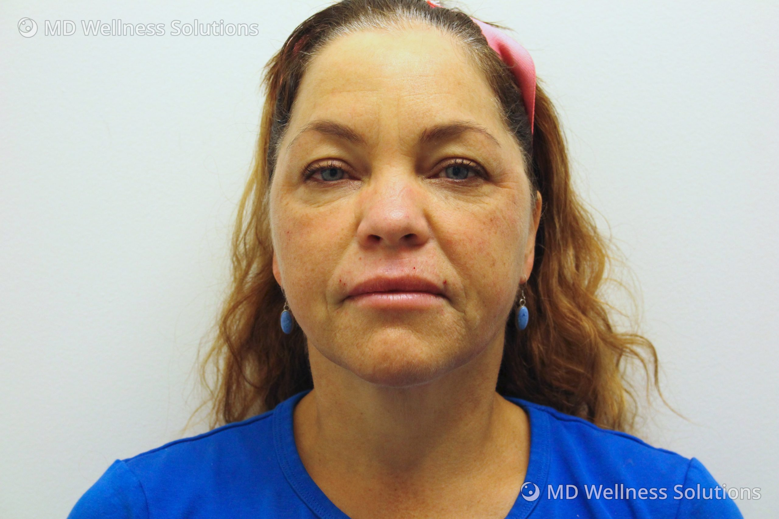 45-54 year old woman after dermal filler treatment