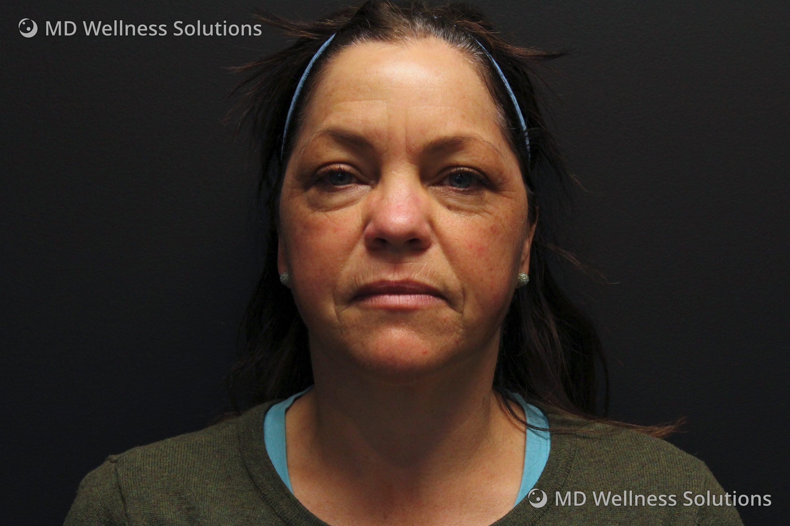45-54 year old woman before dermal filler treatment