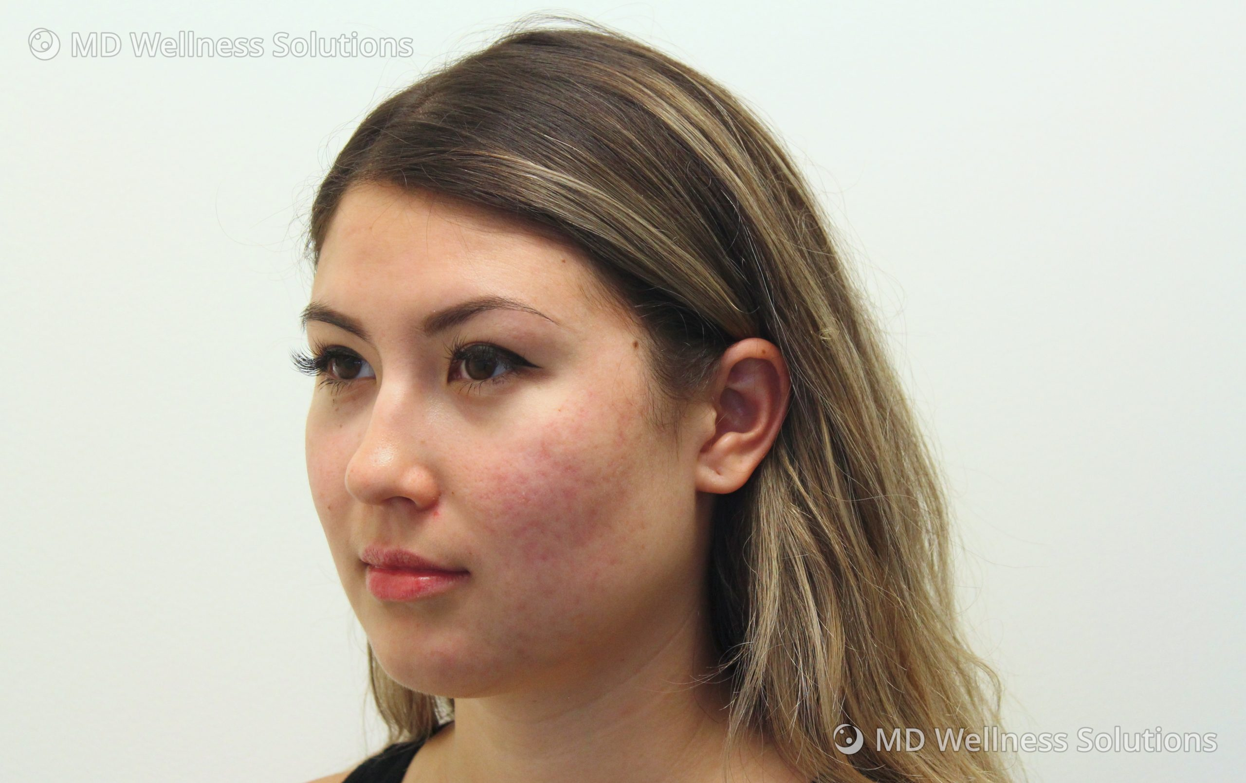 18-24 year old woman after acne treatment