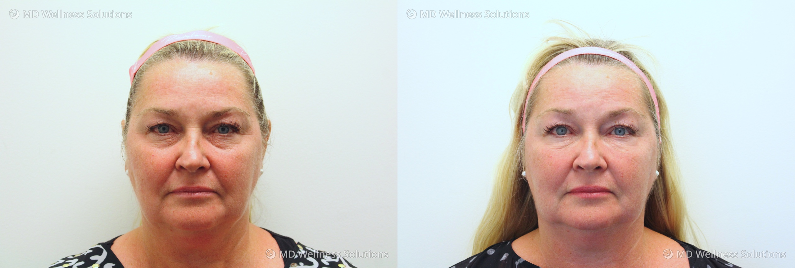 55-64 year old woman before and after dermal filler treatment