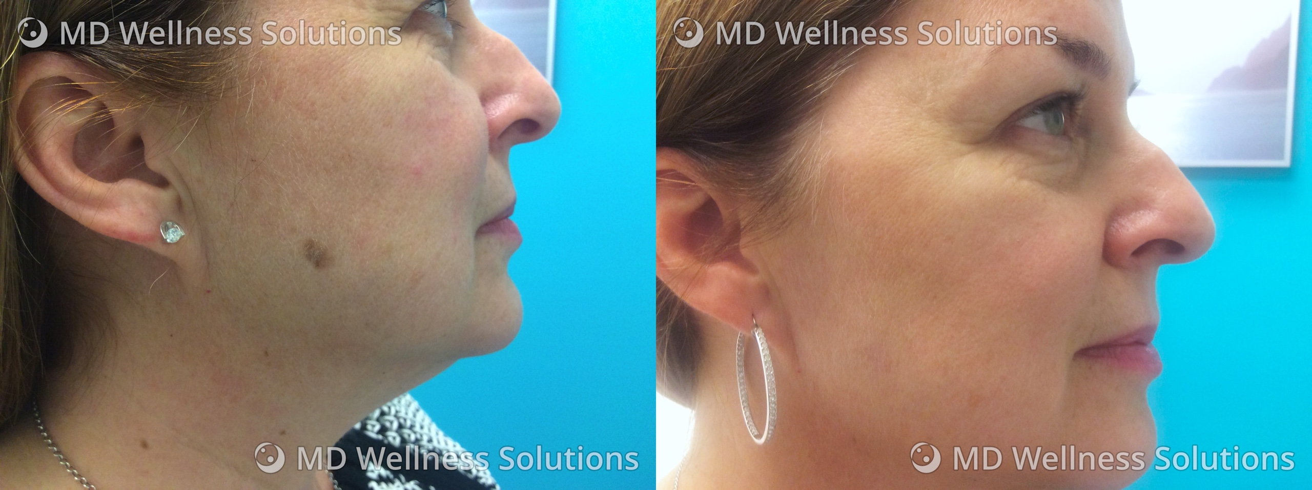 55-64 year old woman before and after special area treatment