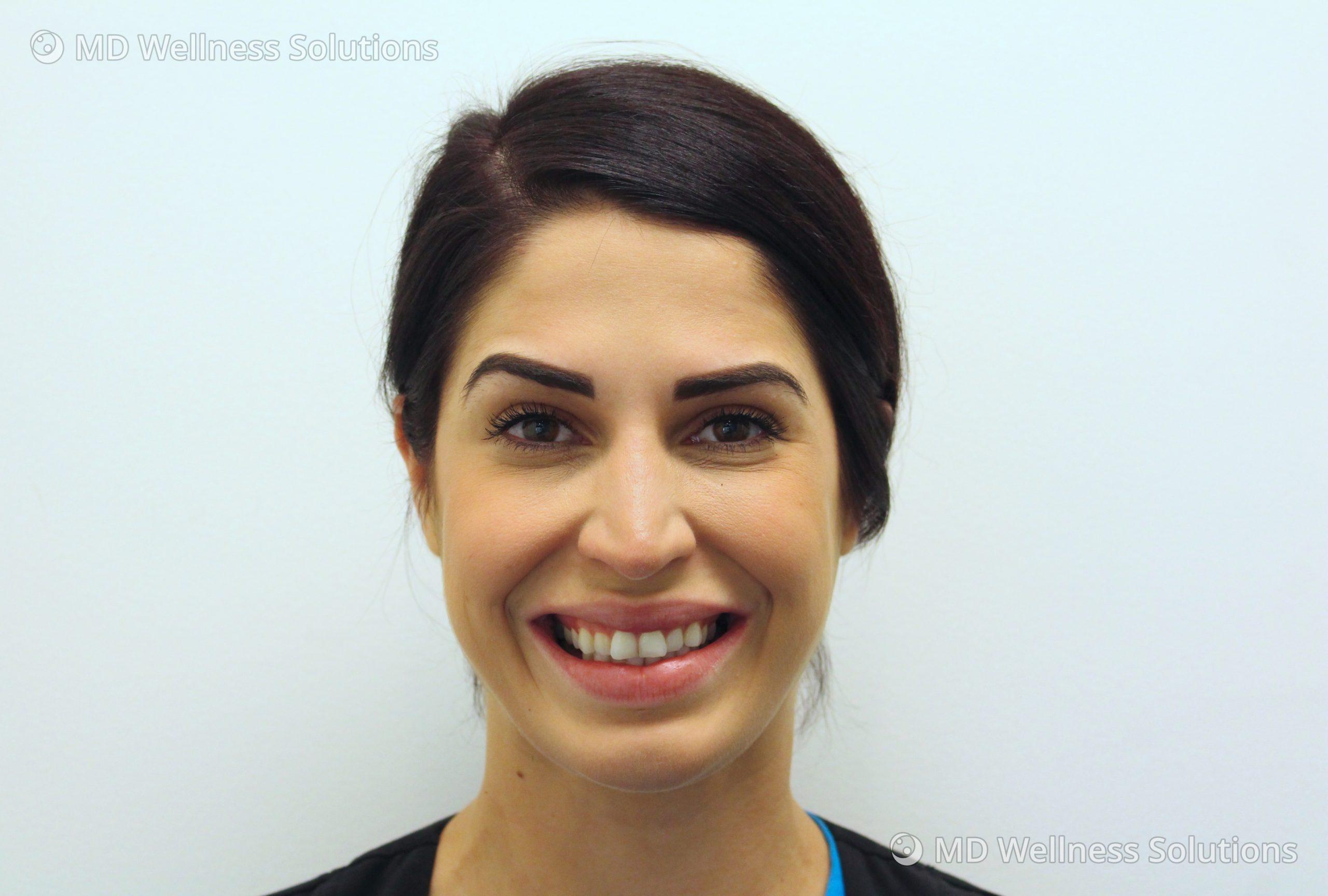 25-34 year old woman before neurotoxin treatment