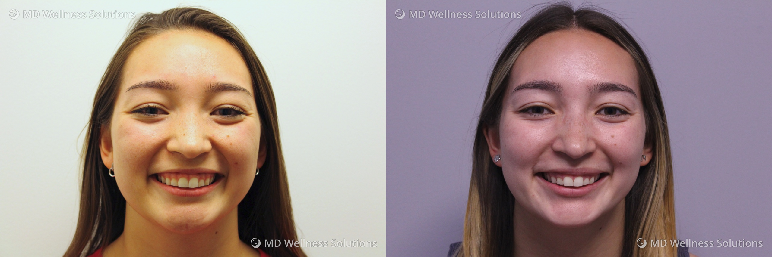 18-24 year old woman before and after neurotoxin treatment