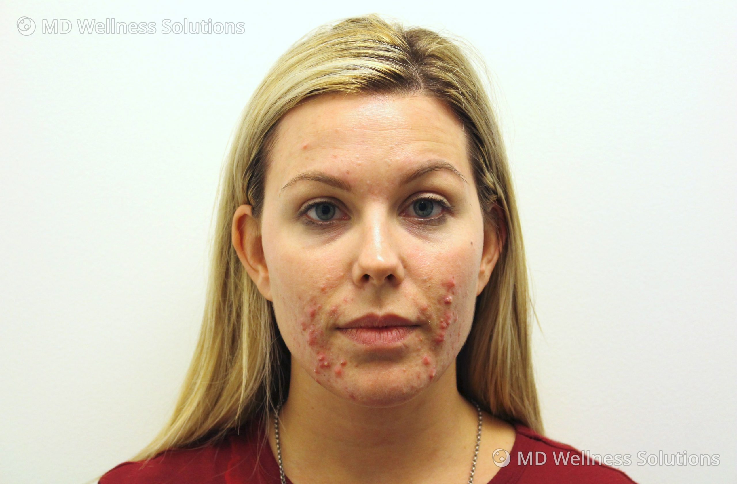 25-34 year old woman before acne treatment