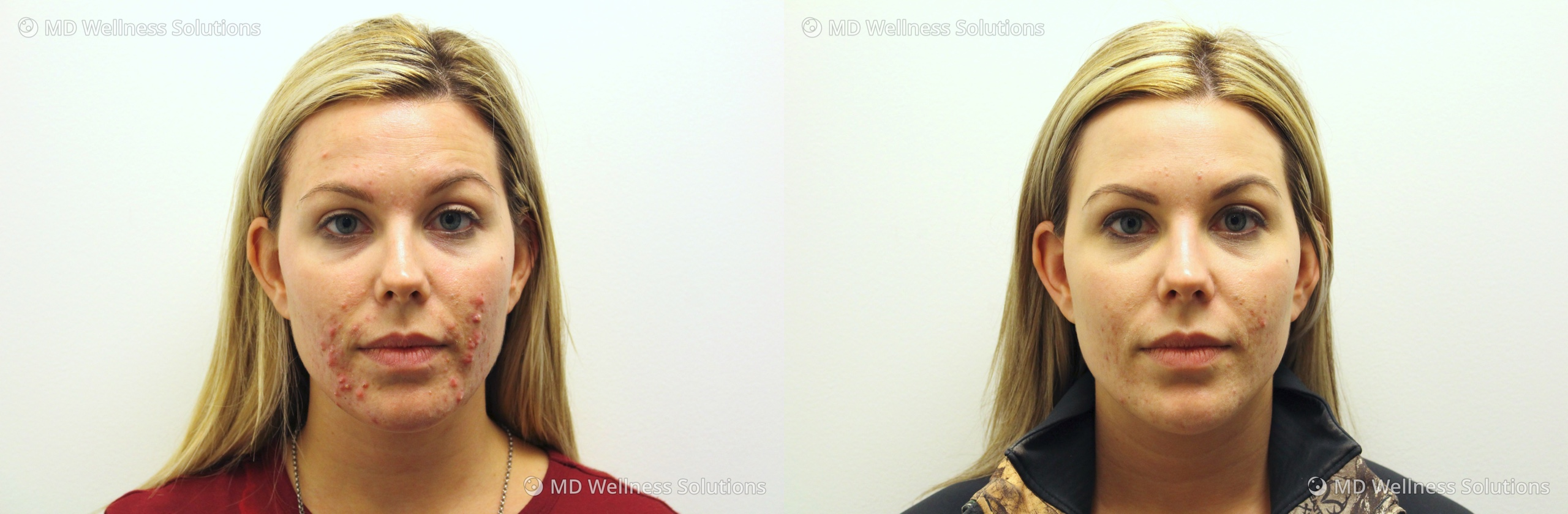 25-34 year old woman before and after acne treatment