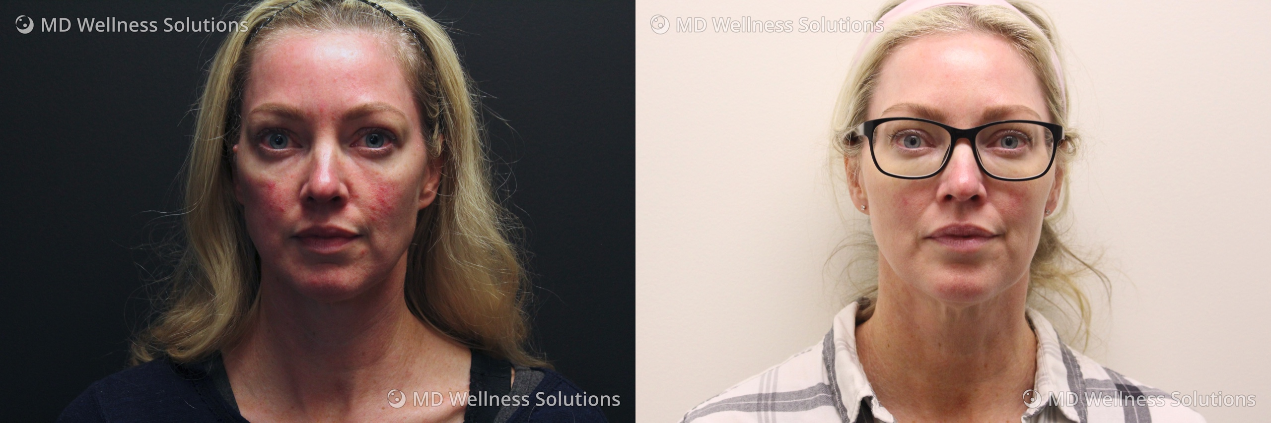 35-44 year old woman before and after IPL treatment
