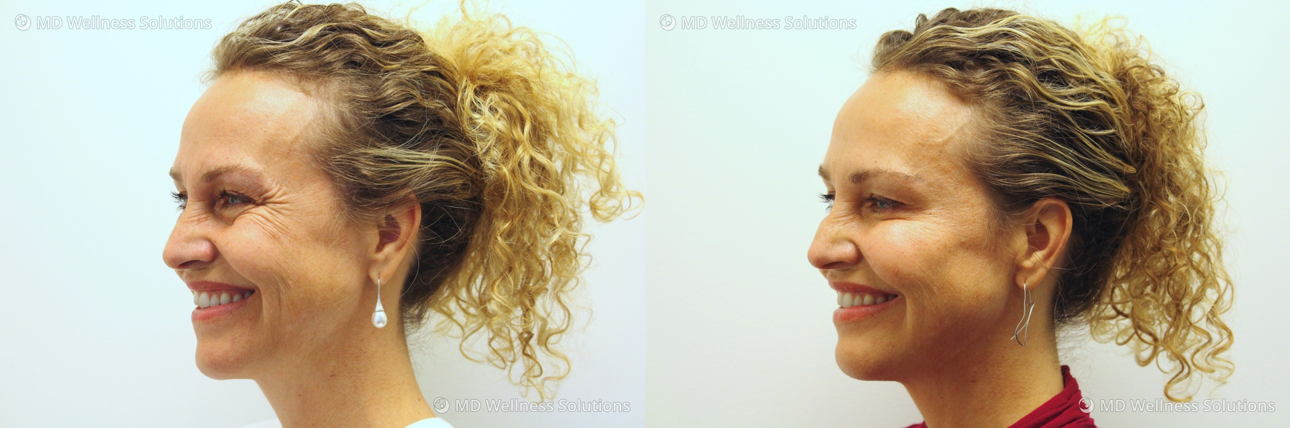 45-54 year old woman before and after neurotoxin treatment