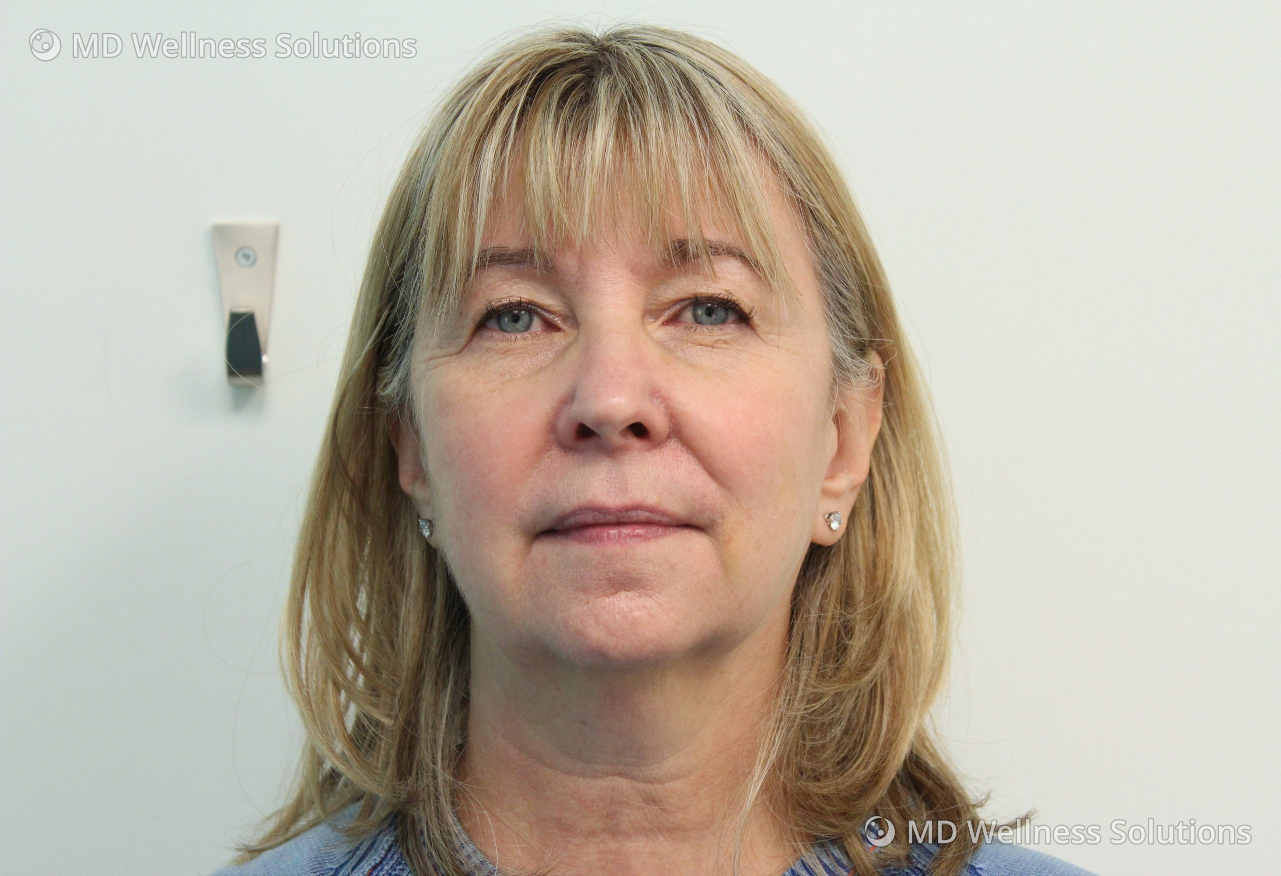 Gallery: 55-64 year old woman after dermal filler treatment