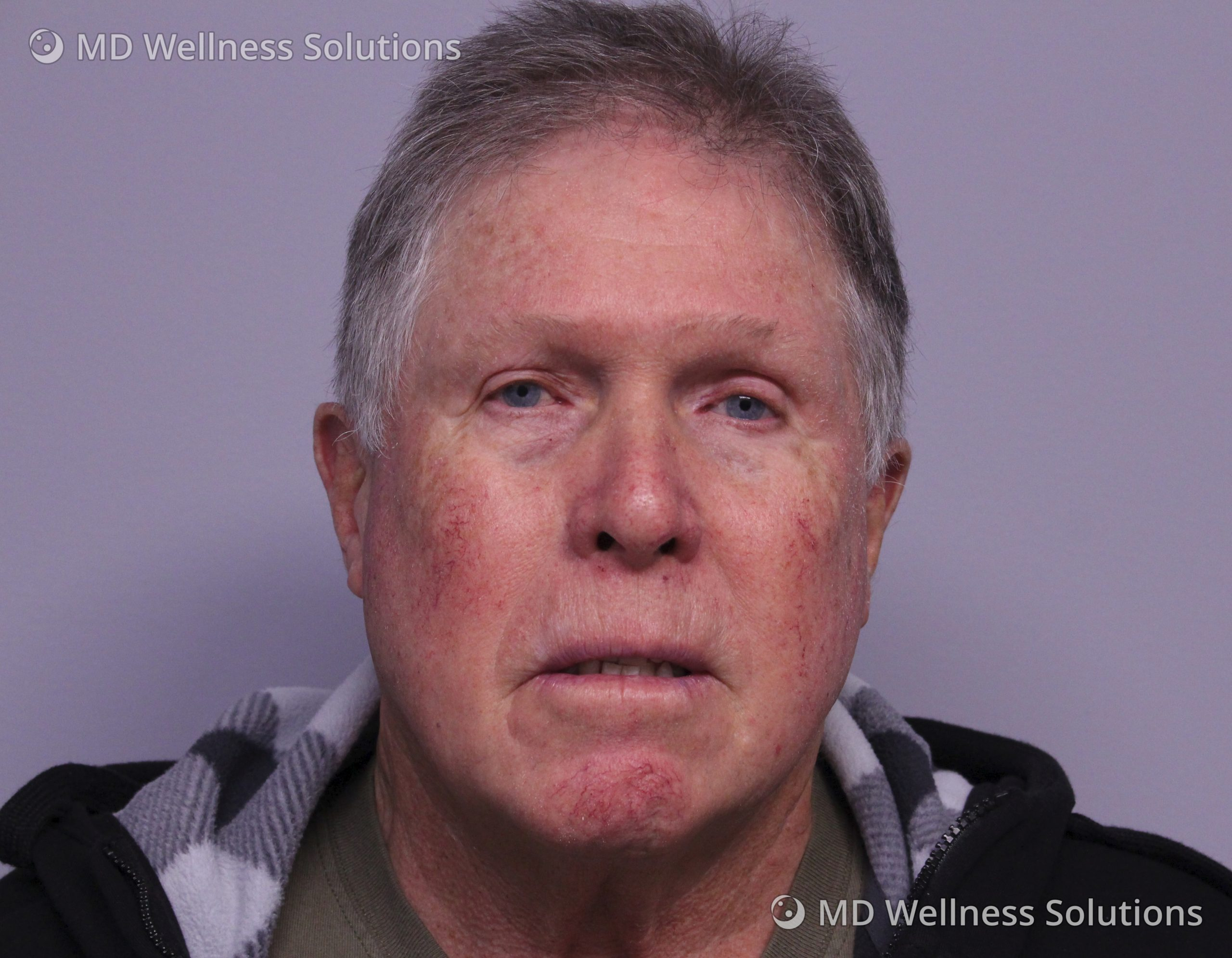 65-74 year old man before IPL treatment