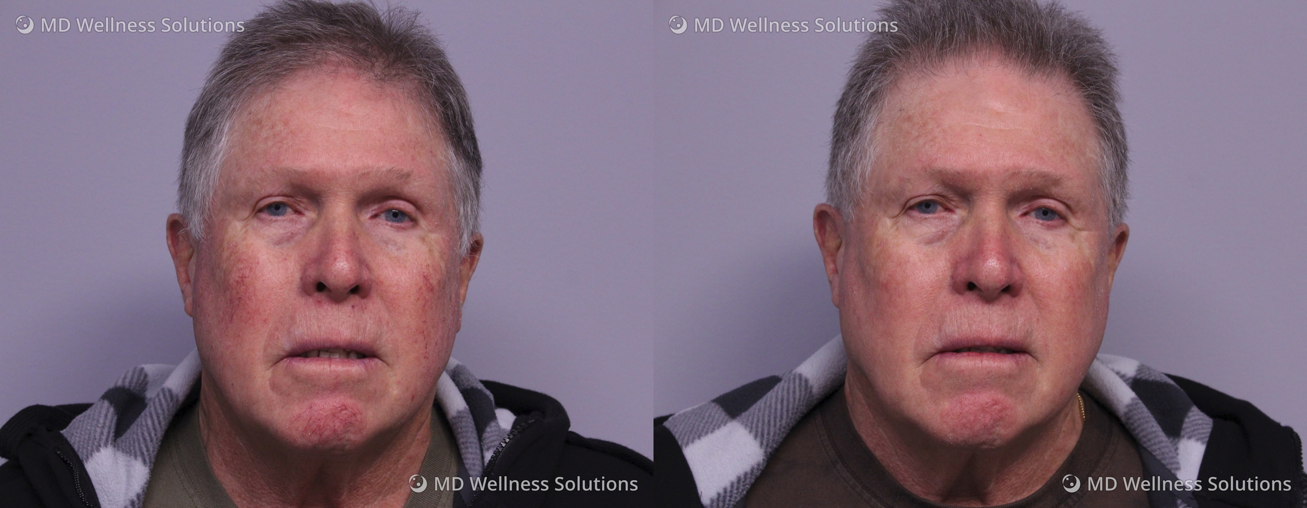 65-74 year old man before and after IPL treatment