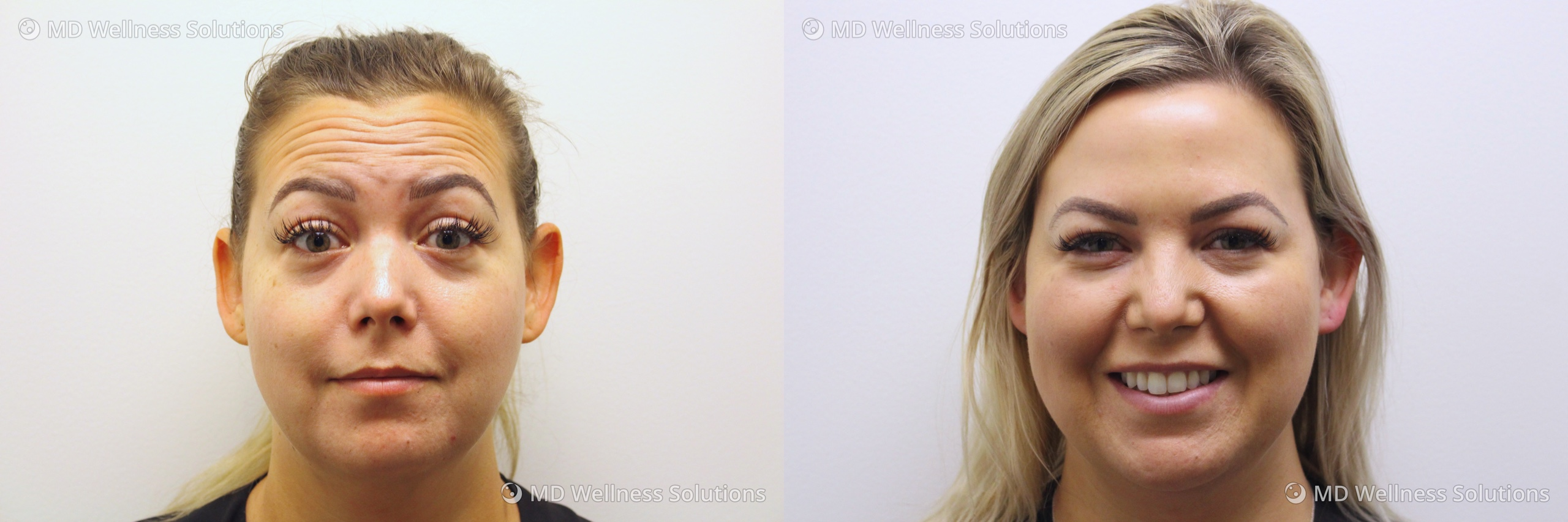 35-44 year old woman before and after neurotoxin treatment