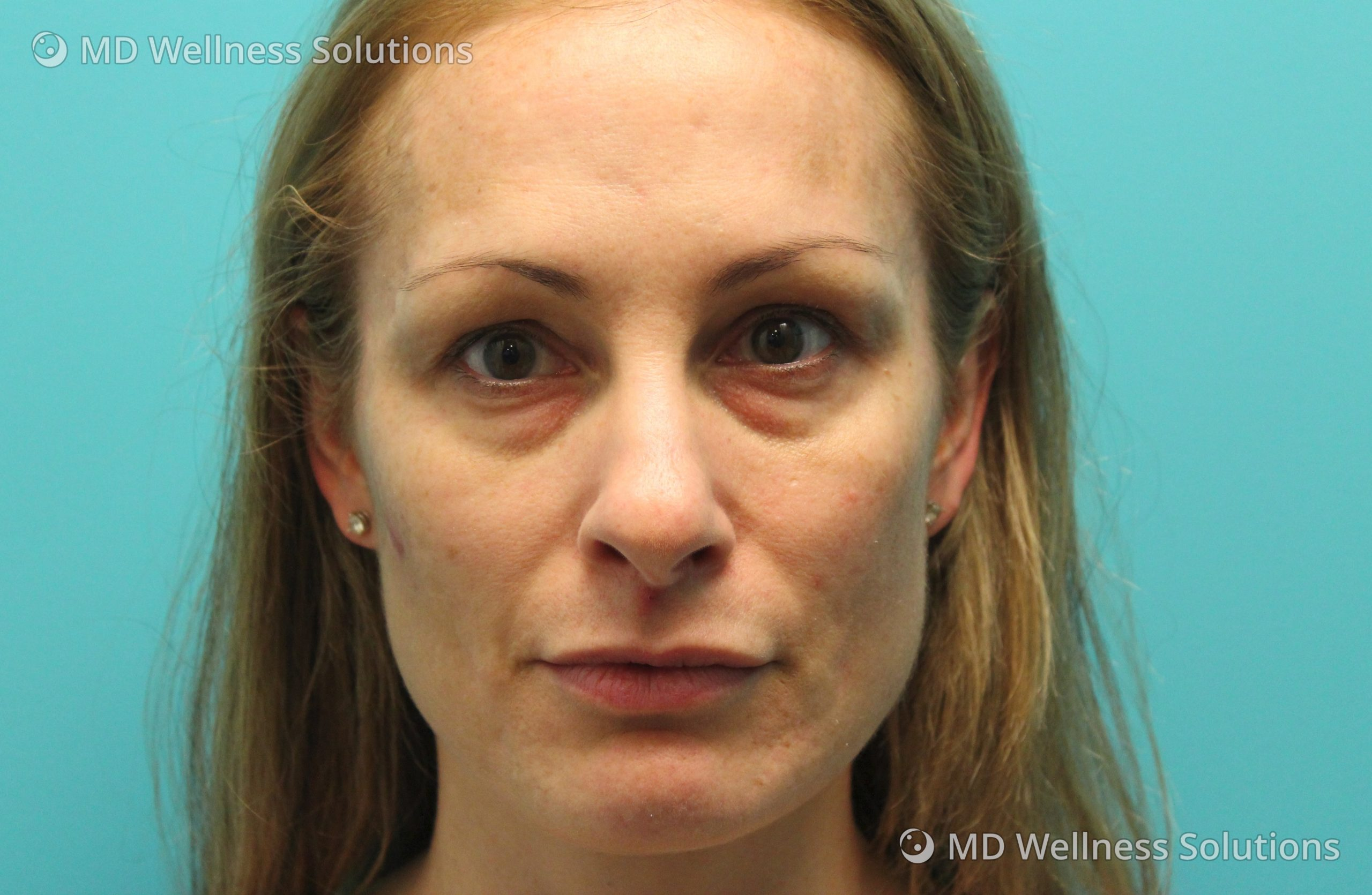 35-44 year old woman before dermal filler treatment