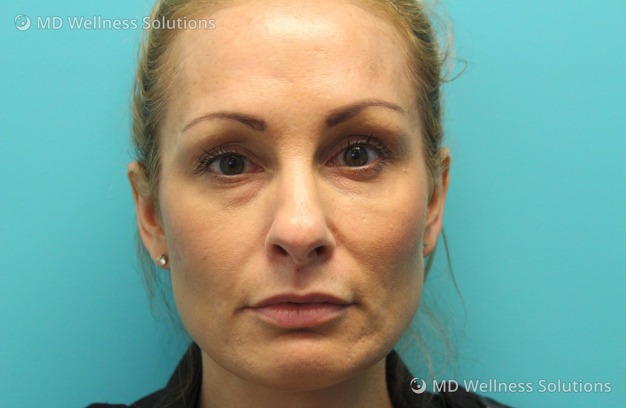 35-44 year old woman after dermal filler treatment