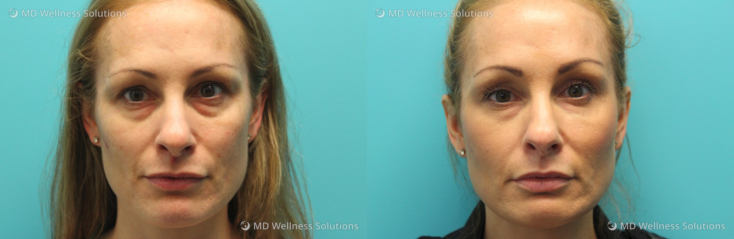 35-44 year old woman before and after dermal filler treatment