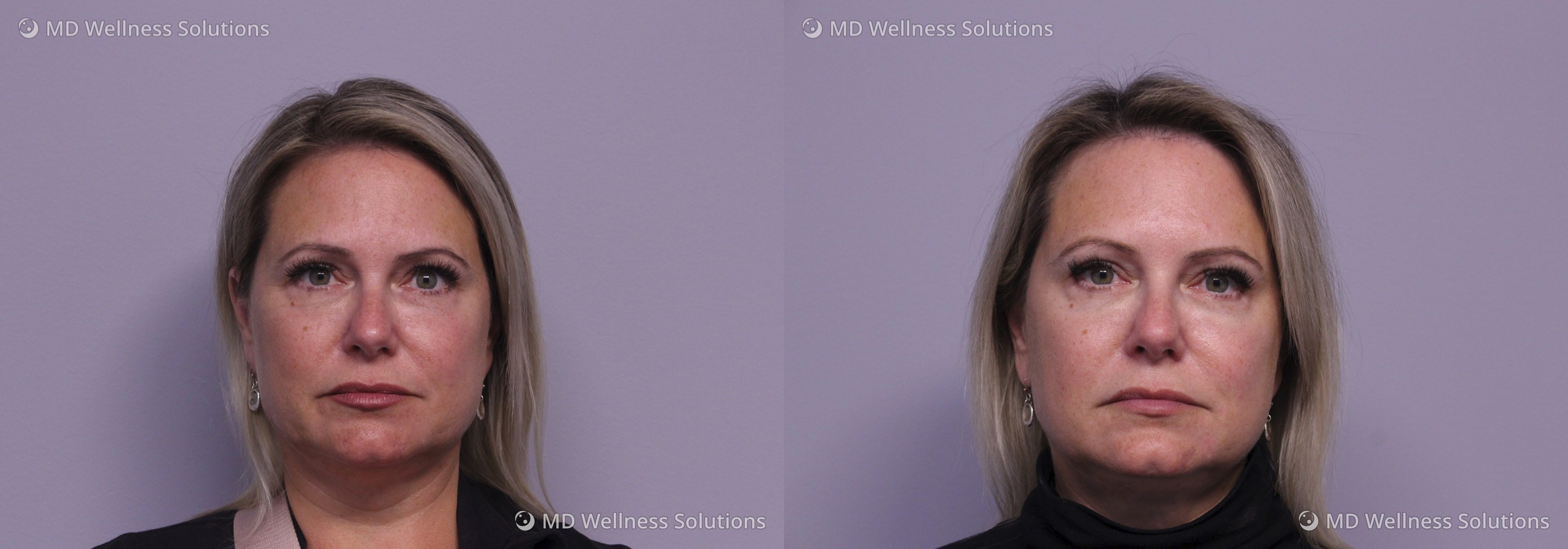 45-54 year old woman before and after dermal filler treatment