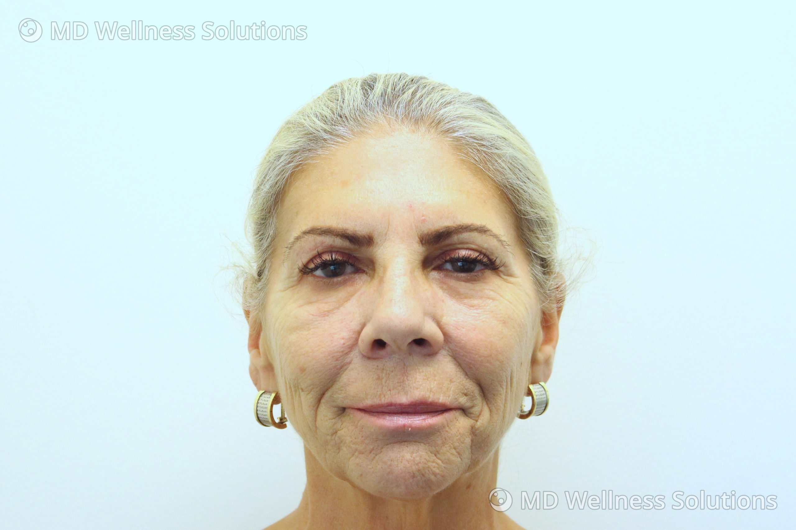 55-64 year old woman after dermal filler treatment