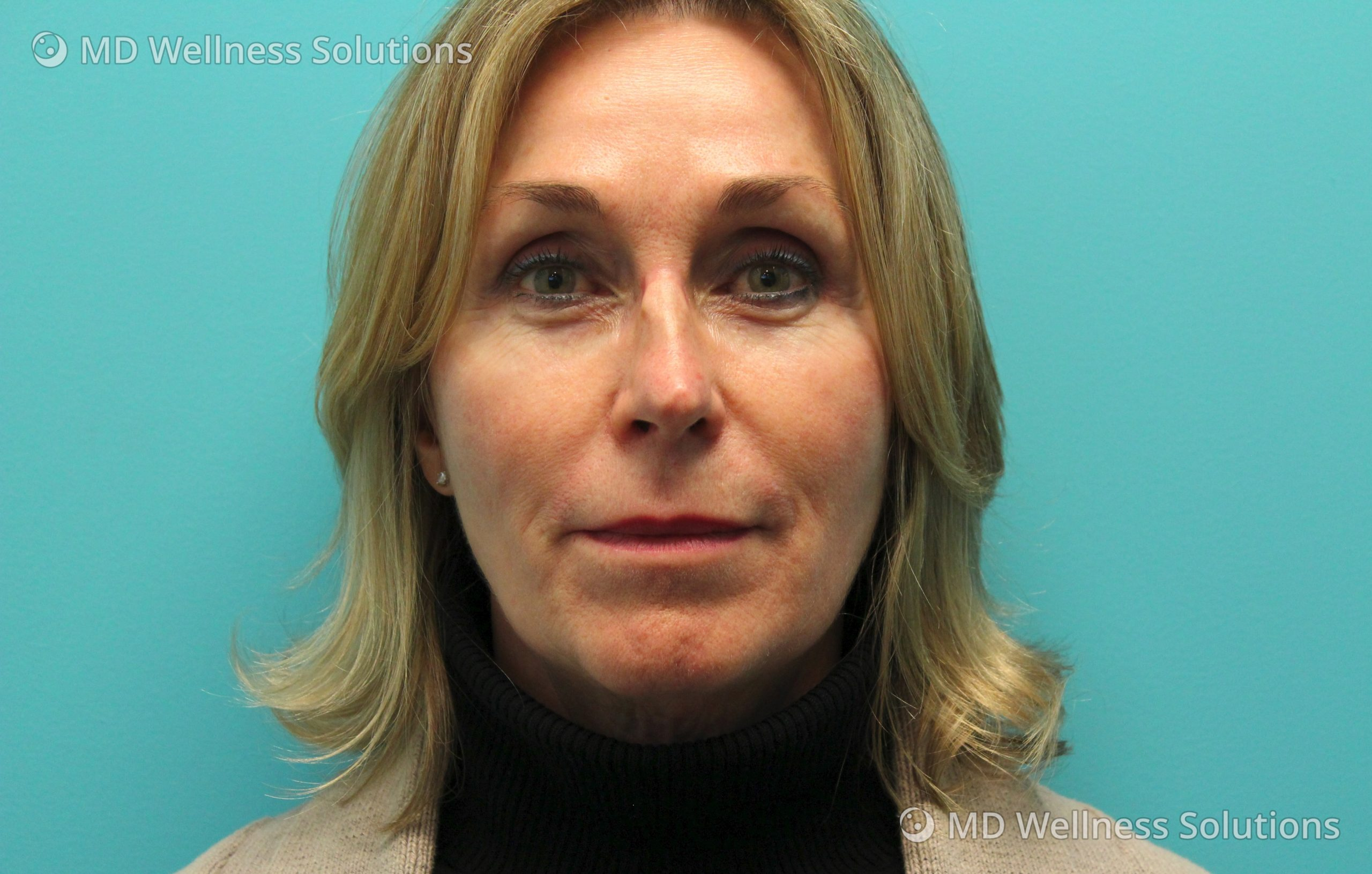65-74 year old woman before dermal filler treatment