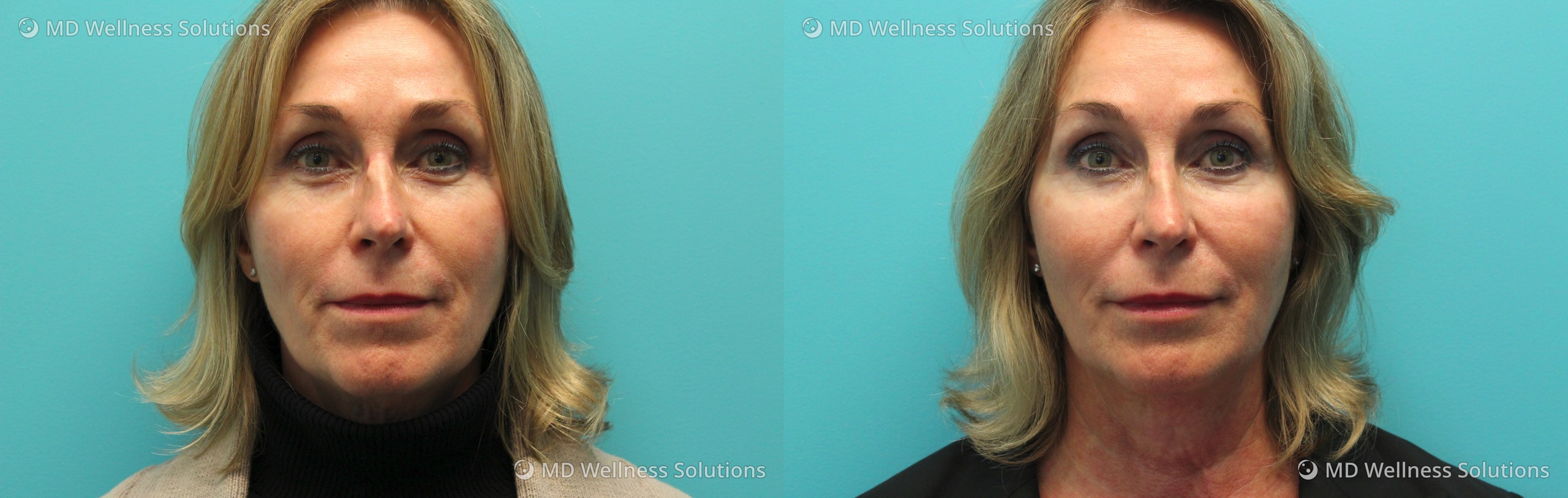 65-74 year old woman before and after dermal filler treatment