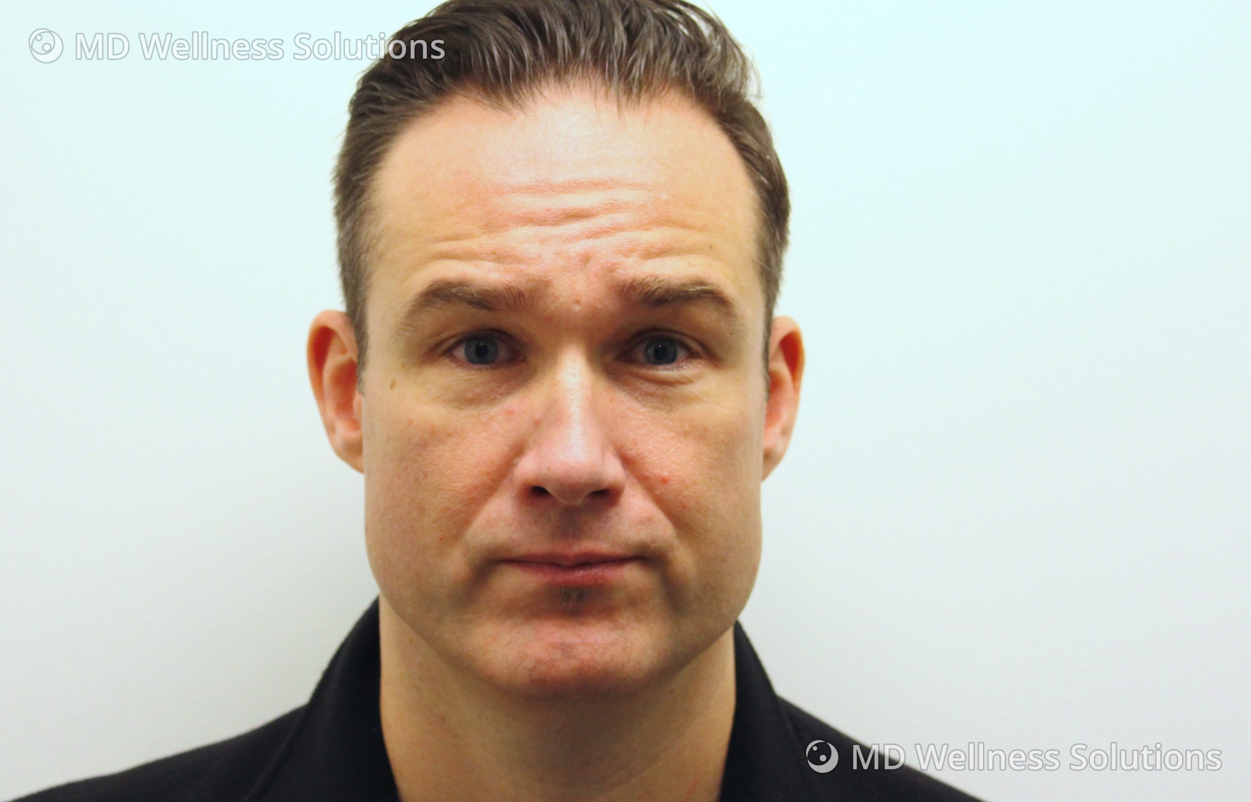 45-54 year old man before neurotoxin treatment