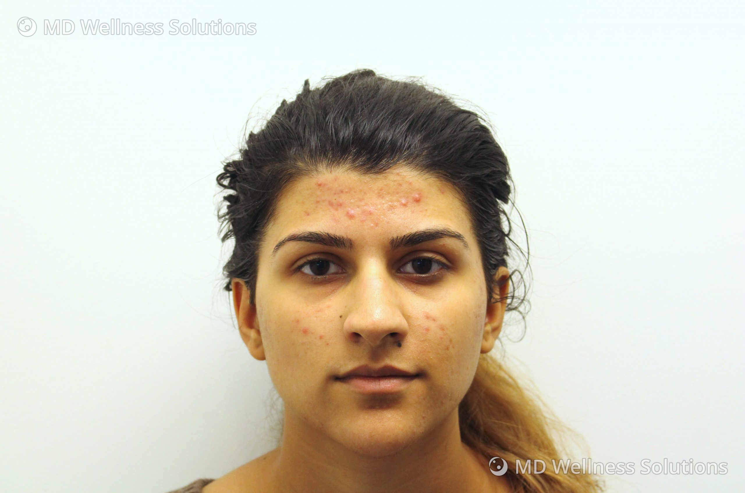 18-24 year old woman before acne treatment
