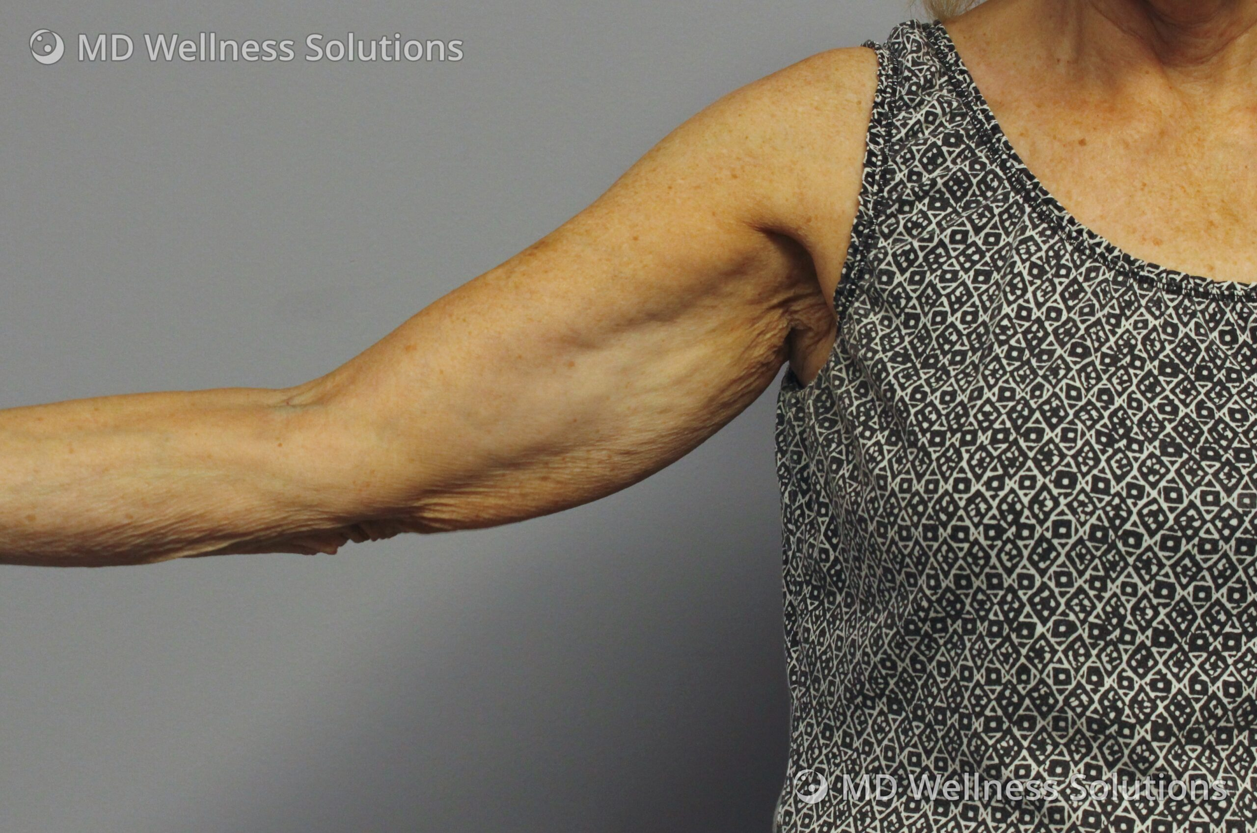 65-74 year old woman after FlexSure body contouring treatment