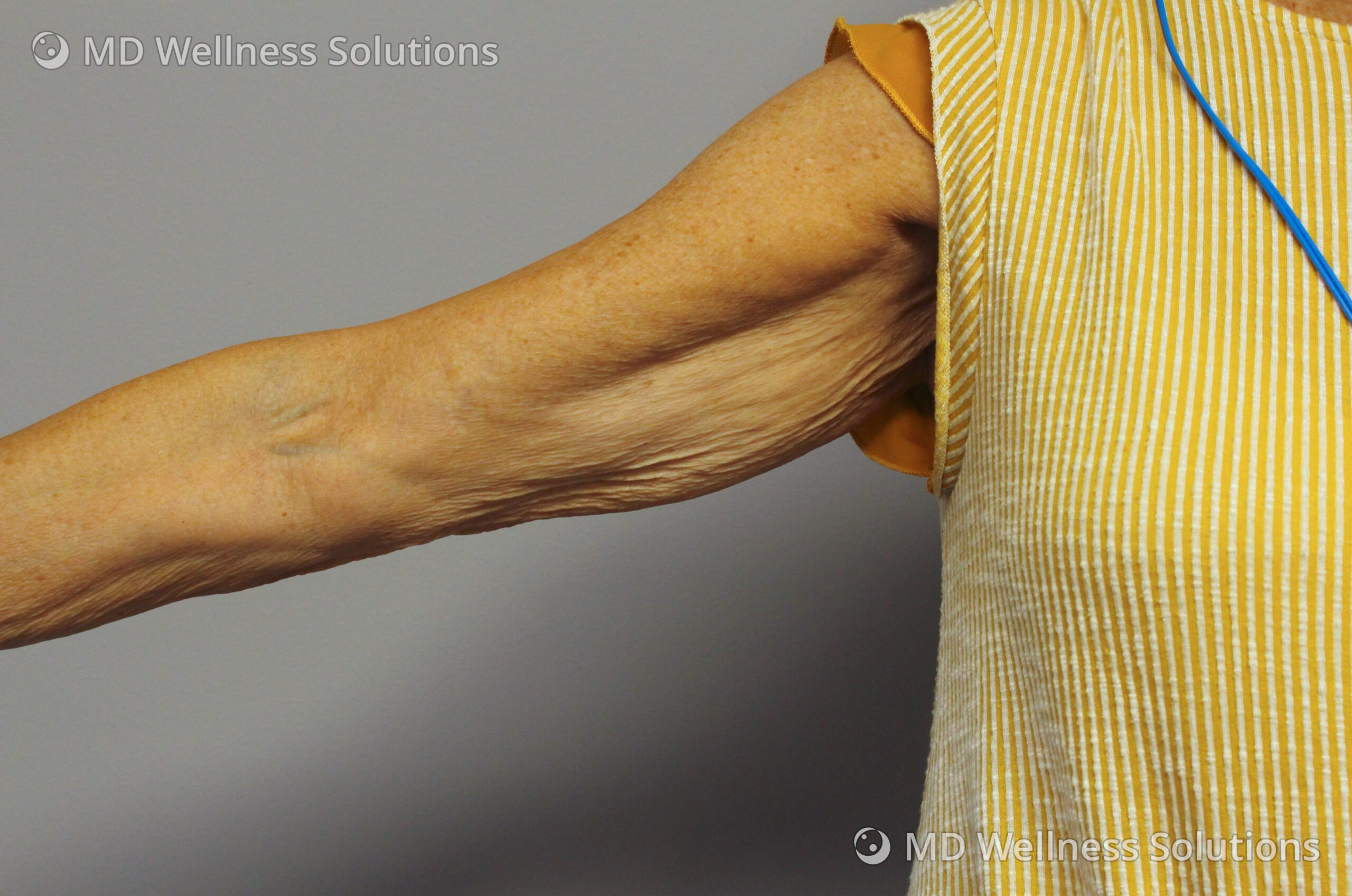 65-74 year old woman before FlexSure body contouring treatment