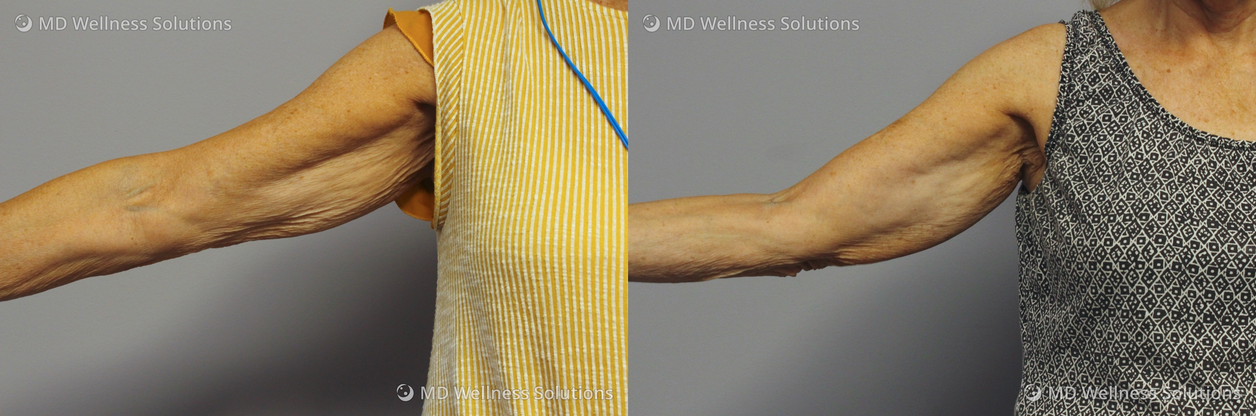 65-74 year old woman before and after FlexSure body contouring treatment
