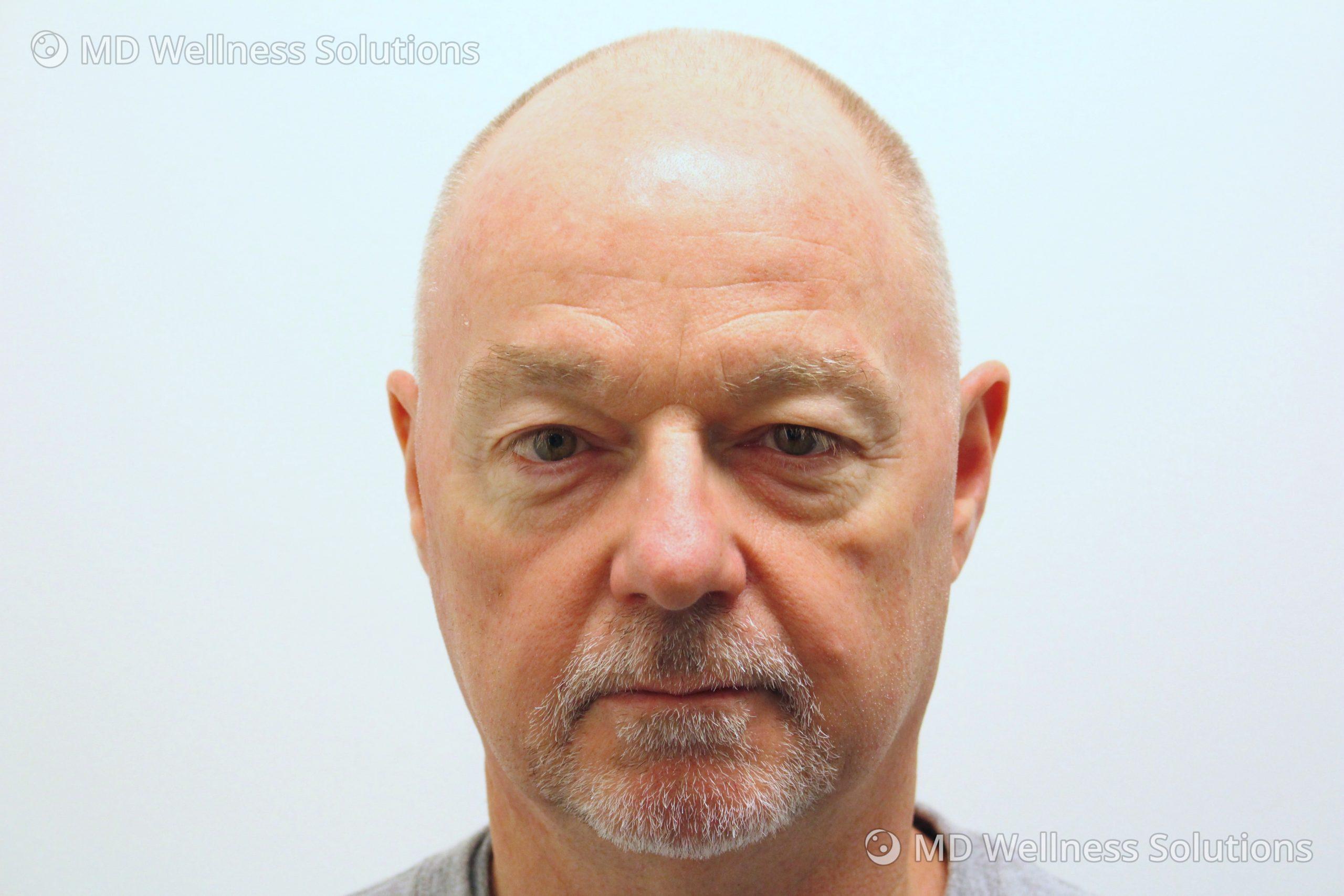 55-64 year old man before dermal filler treatment