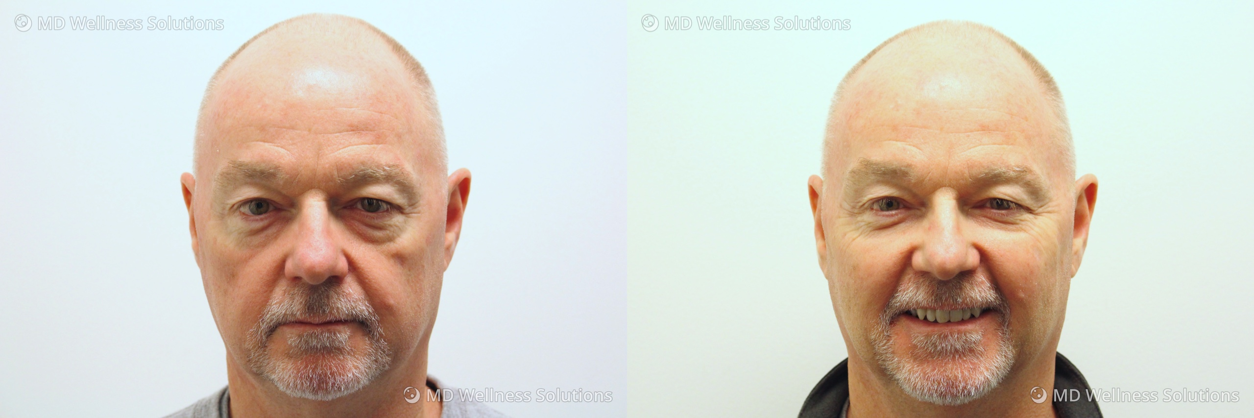 55-64 year old man before and after dermal filler treatment