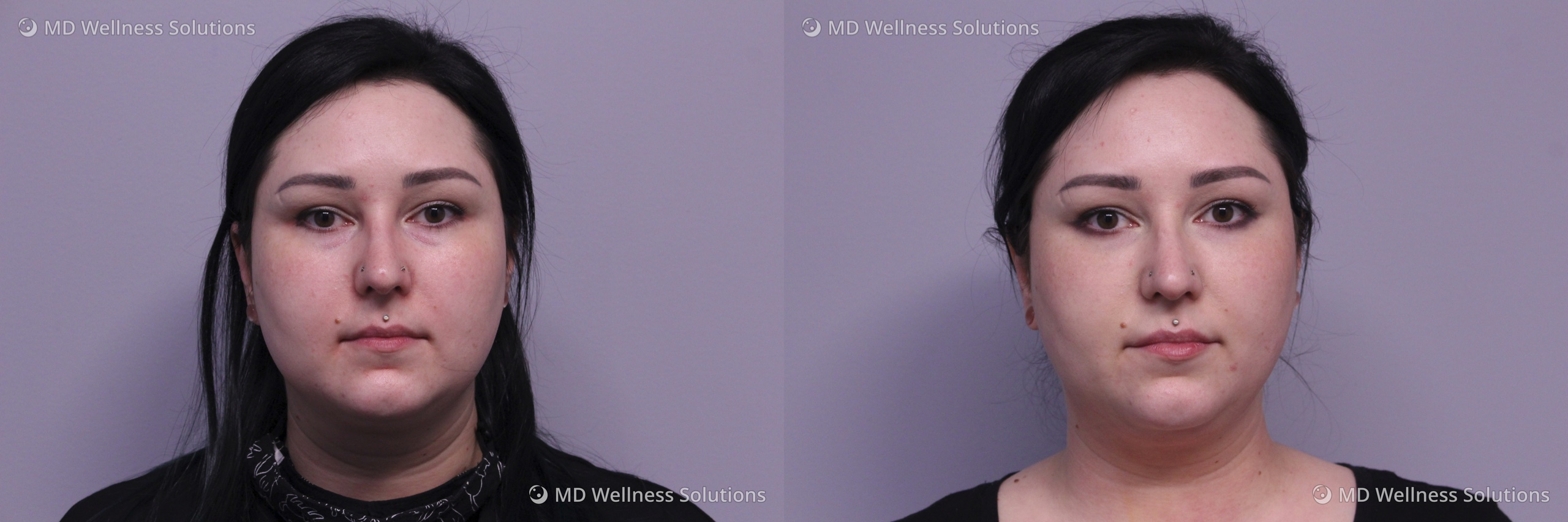 25-34 year old woman before and after dermal filler treatment