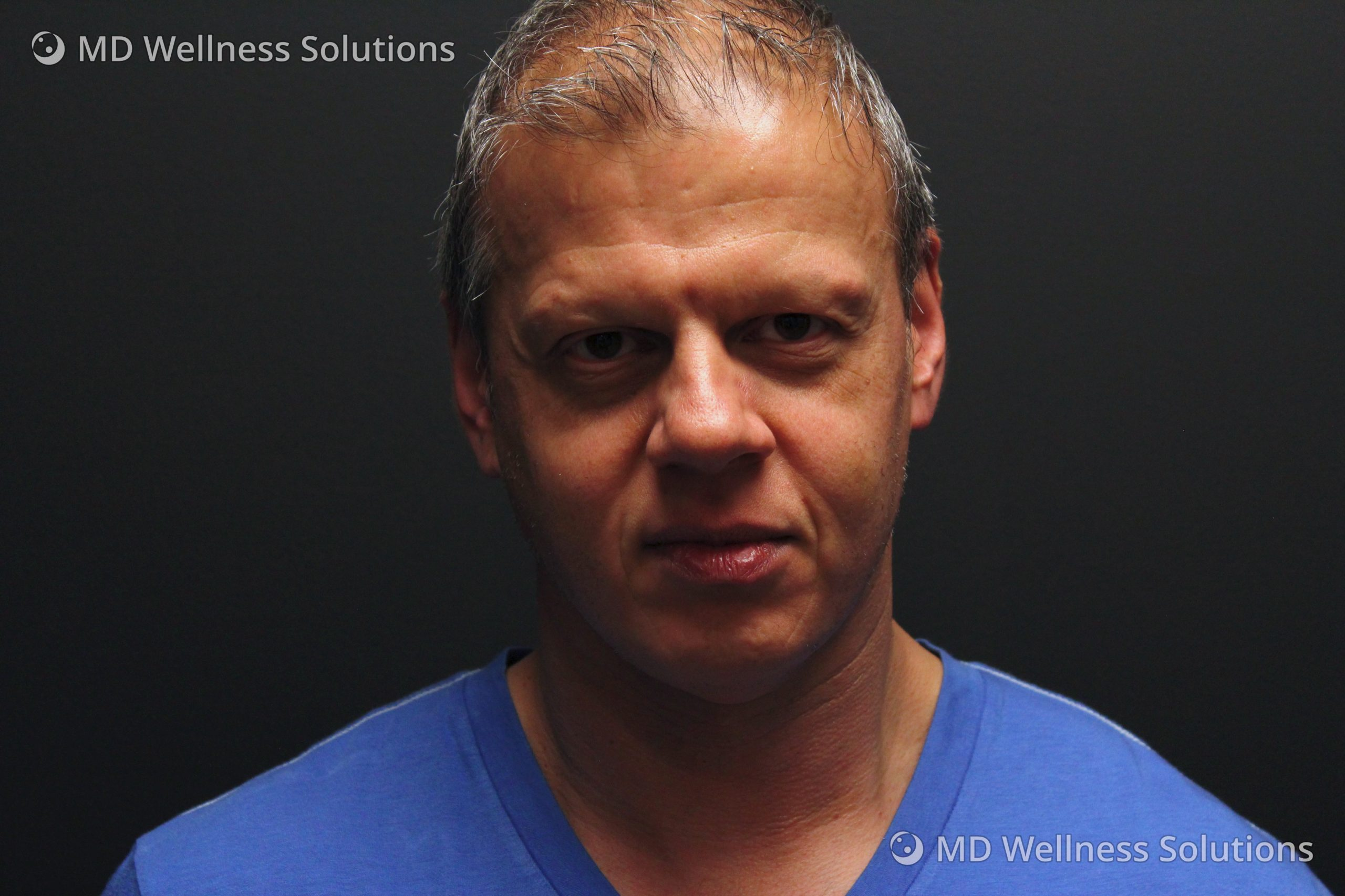 45-54 year old man after dermal filler treatment