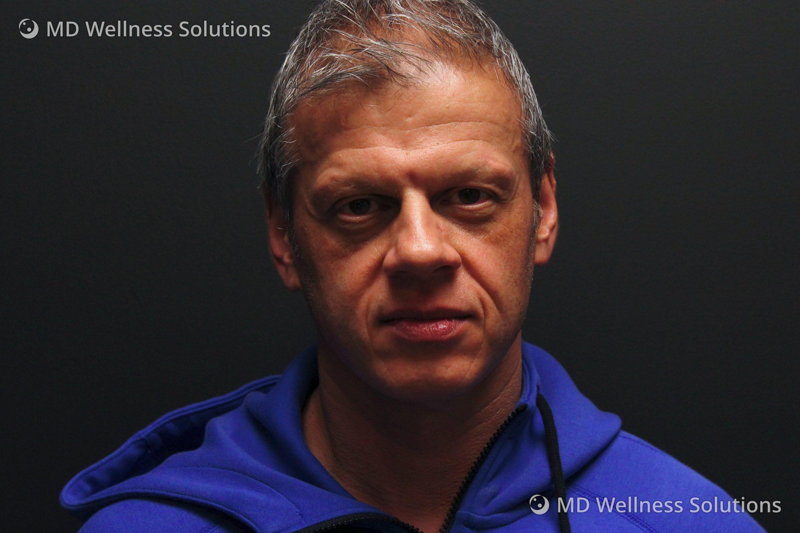 45-54 year old man before dermal filler treatment