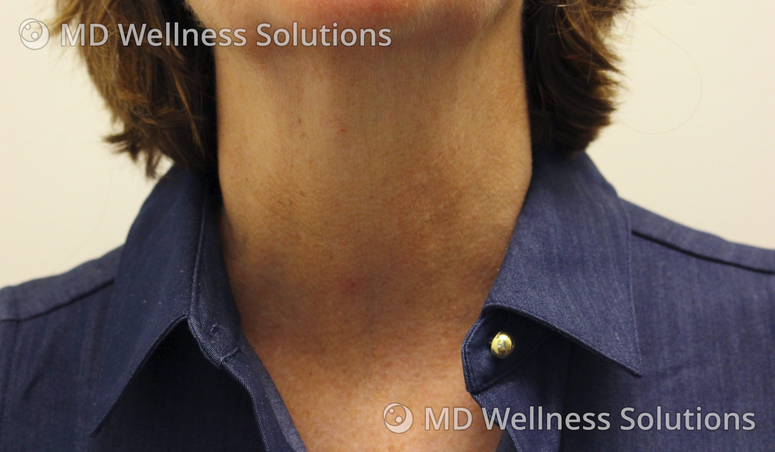 55-64 year old woman after SkinBoosters treatment