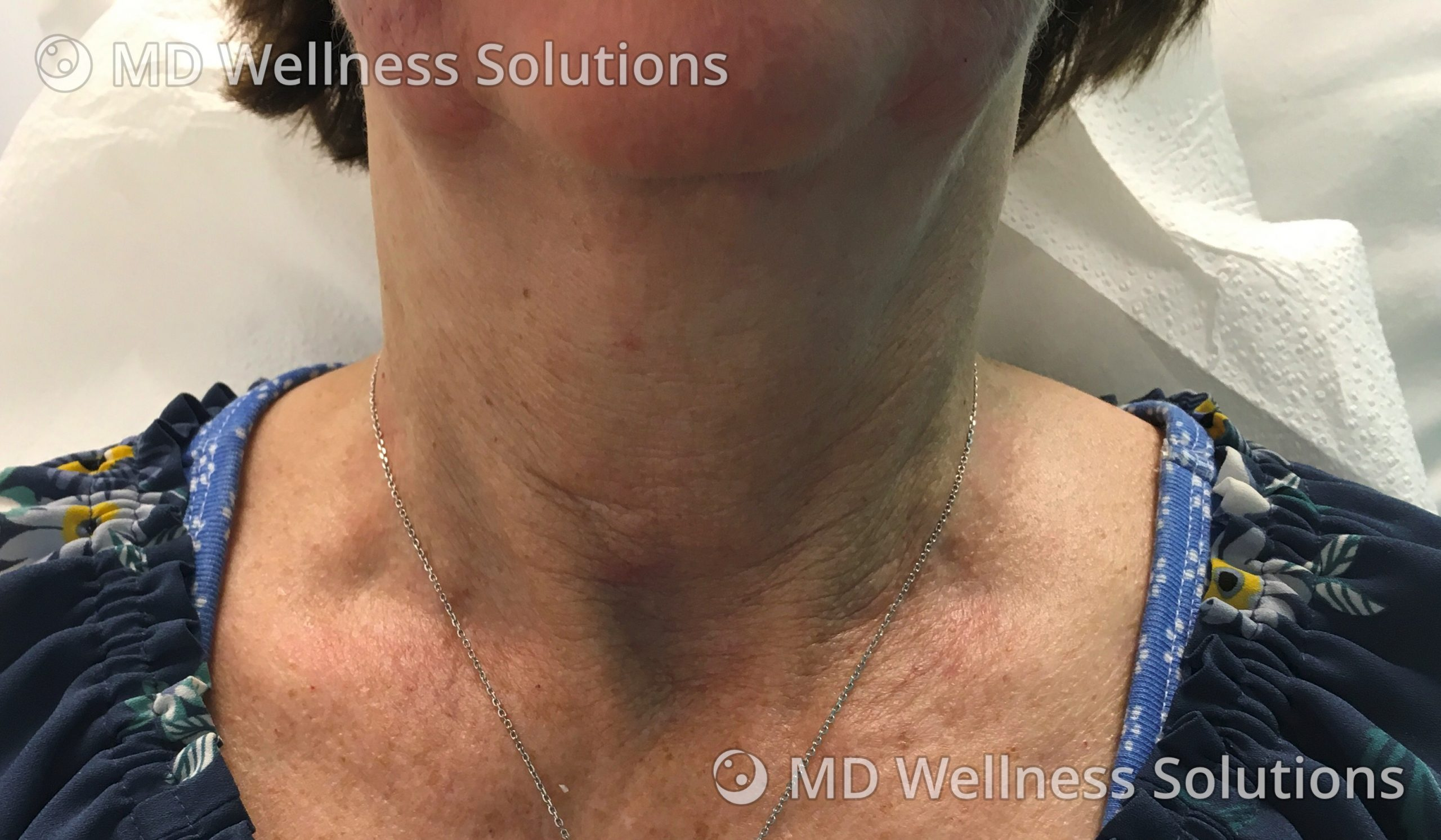 55-64 year old woman before SkinBoosters treatment