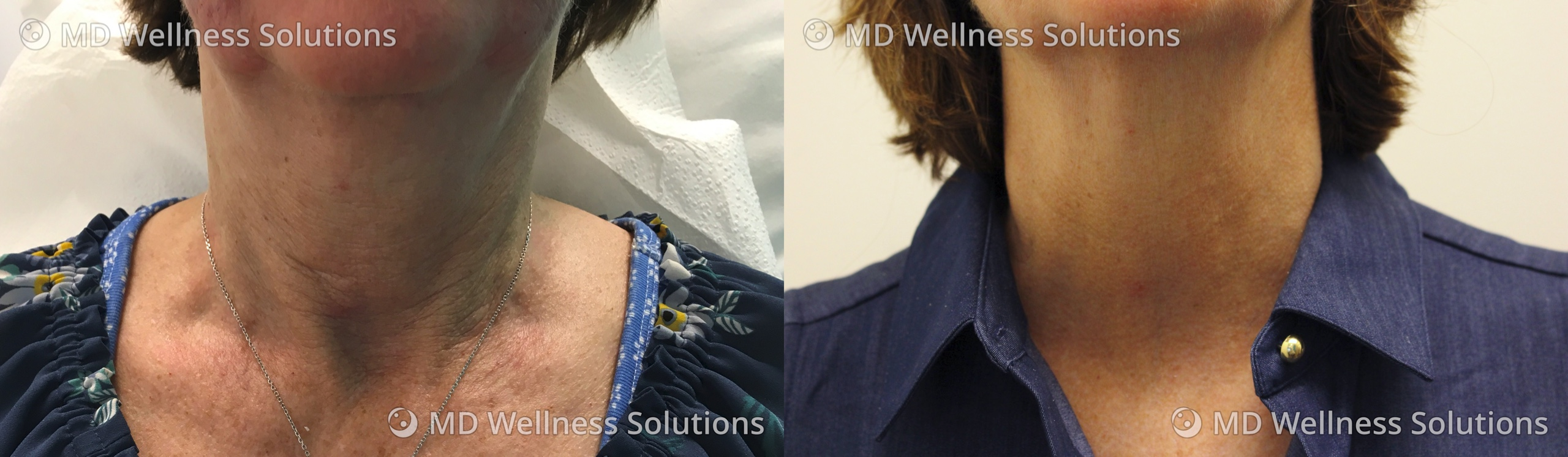 55-64 year old woman before and after SkinBoosters treatment