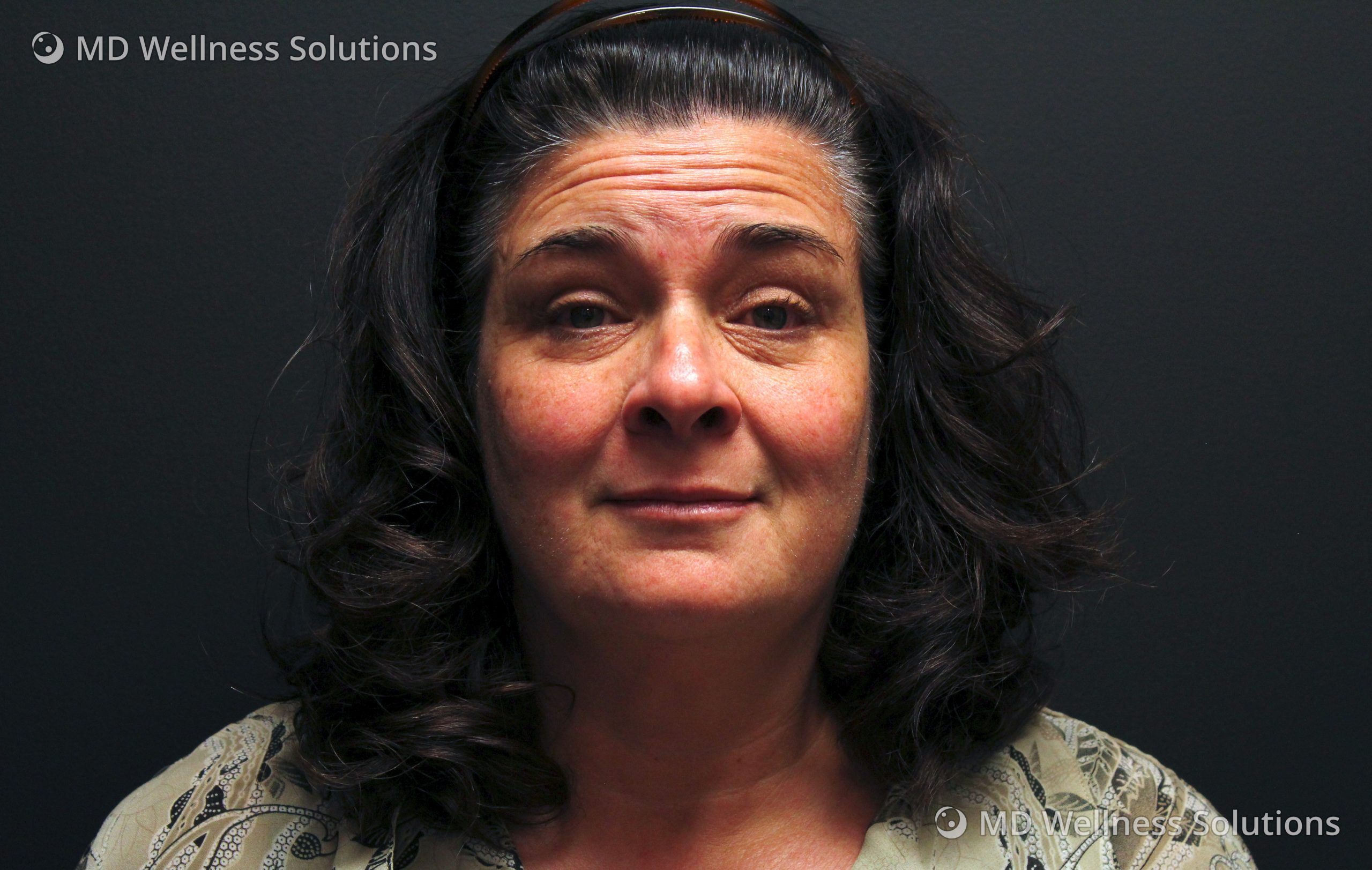 45-54 year old woman before neurotoxin and dermal filler treatment