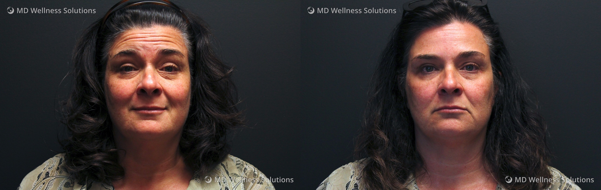 45-54 year old woman before and after neurotoxin and dermal filler treatment