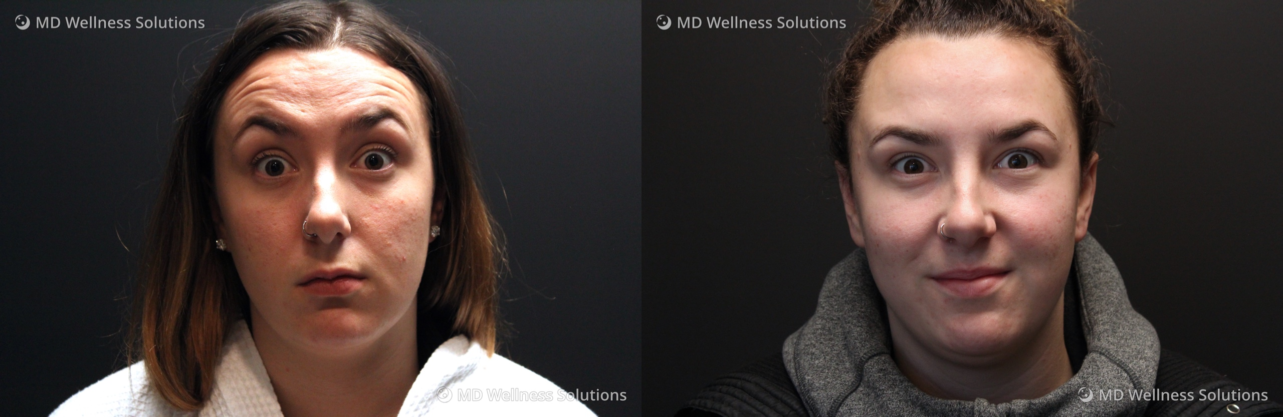 25-34 year old woman before and after neurotoxin treatment