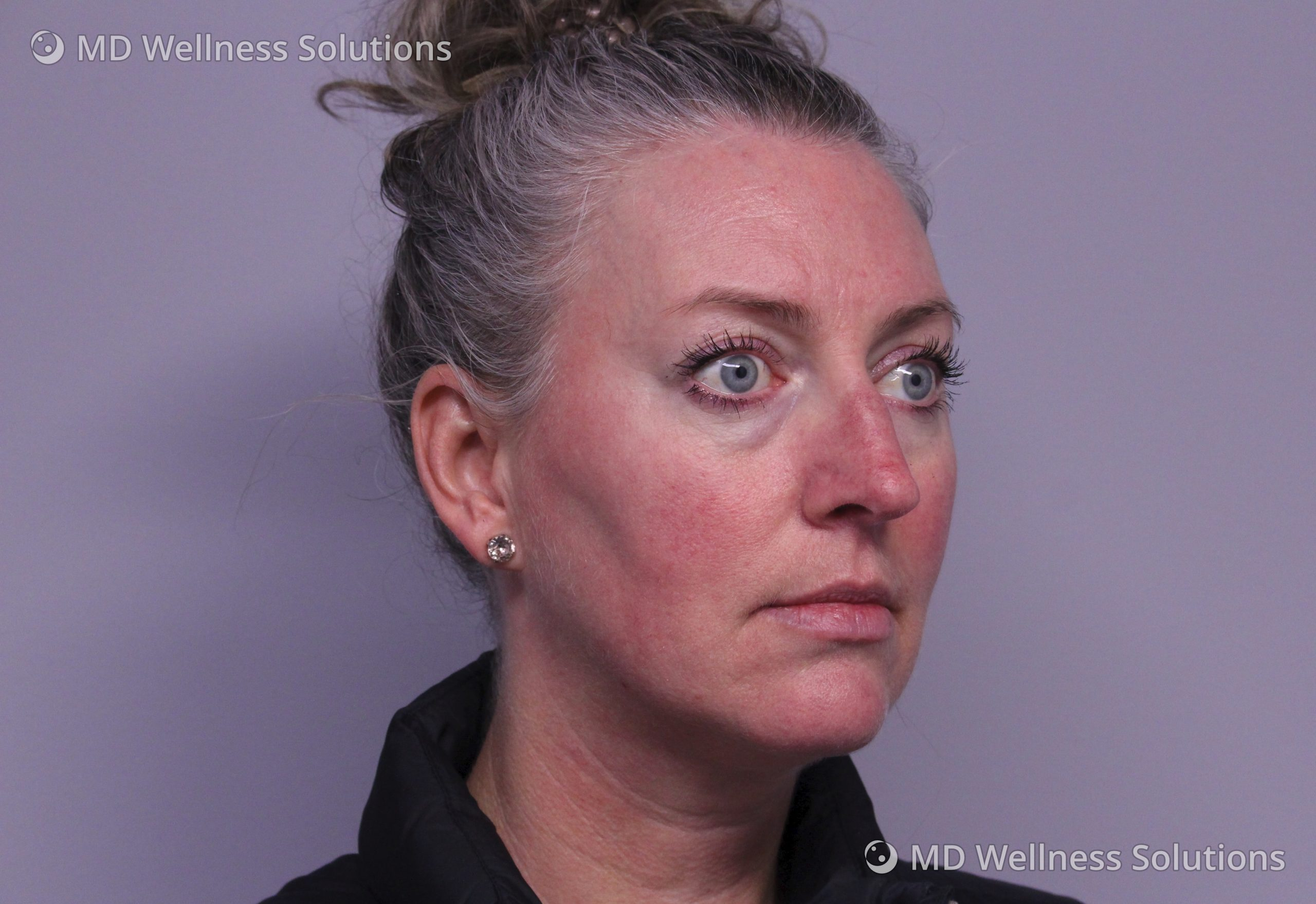 35-44 year old woman after rosacea treatment
