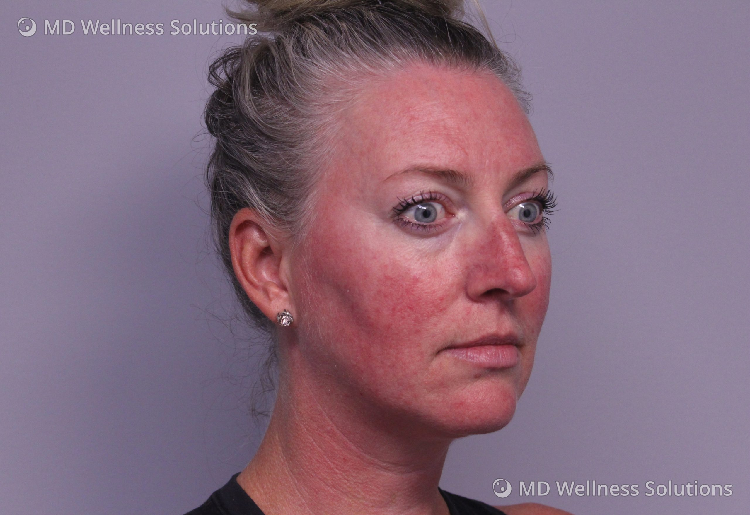 35-44 year old woman before rosacea treatment