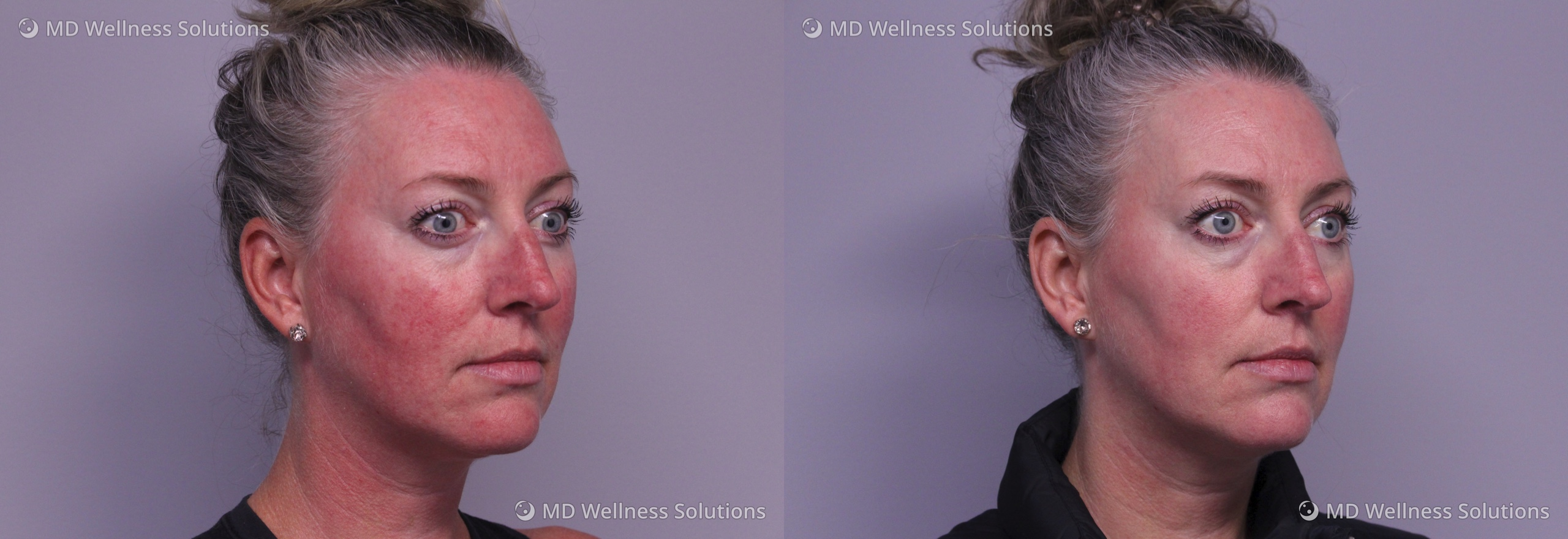 35-44 year old woman before and after rosacea treatment