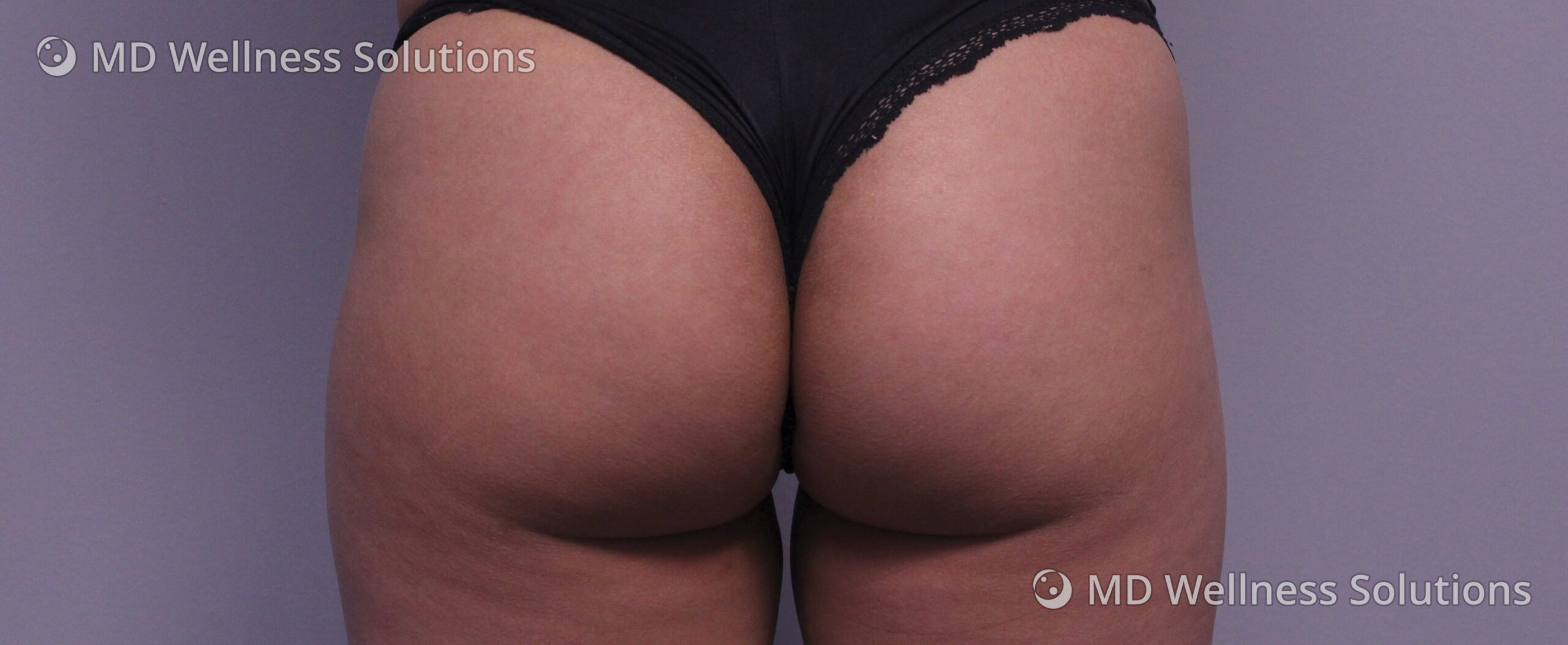 25-34 year old woman after Emsculpt NEO body contouring treatment