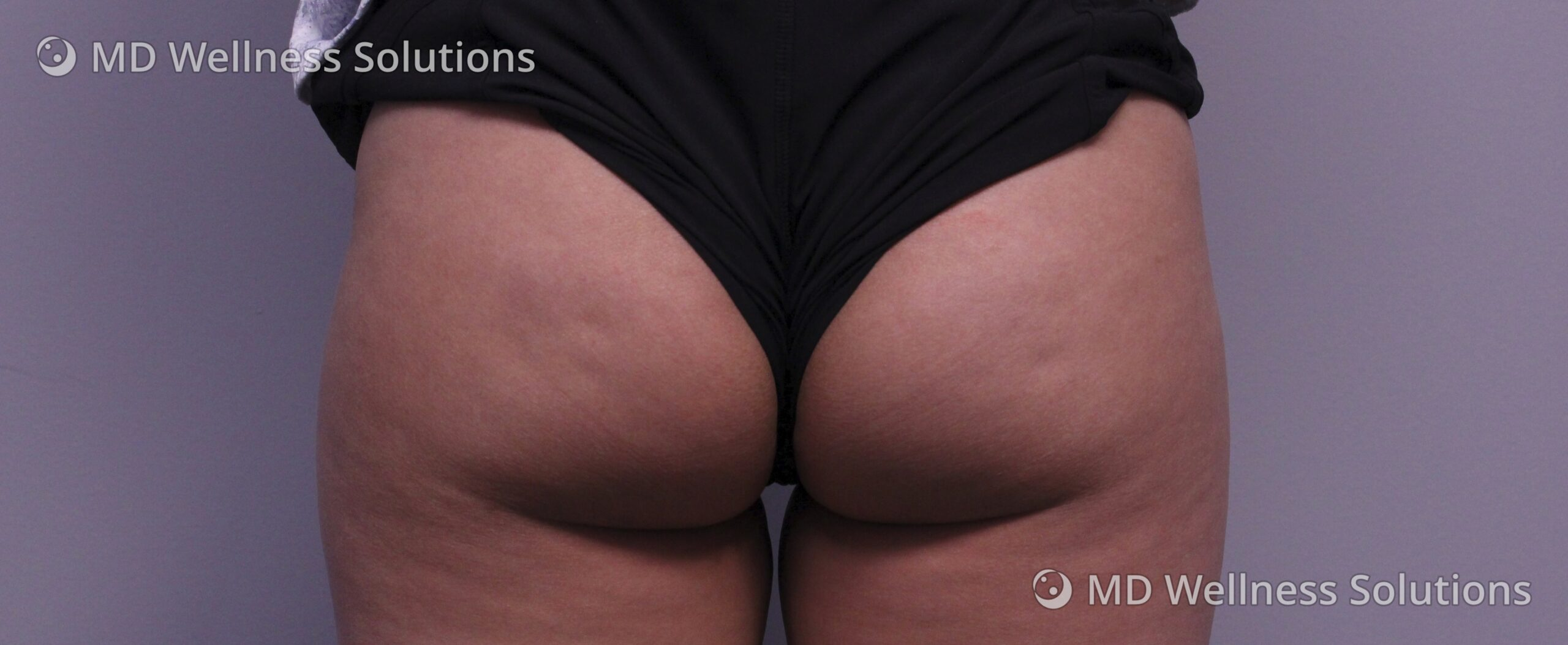 25-34 year old woman before Emsculpt NEO body contouring treatment