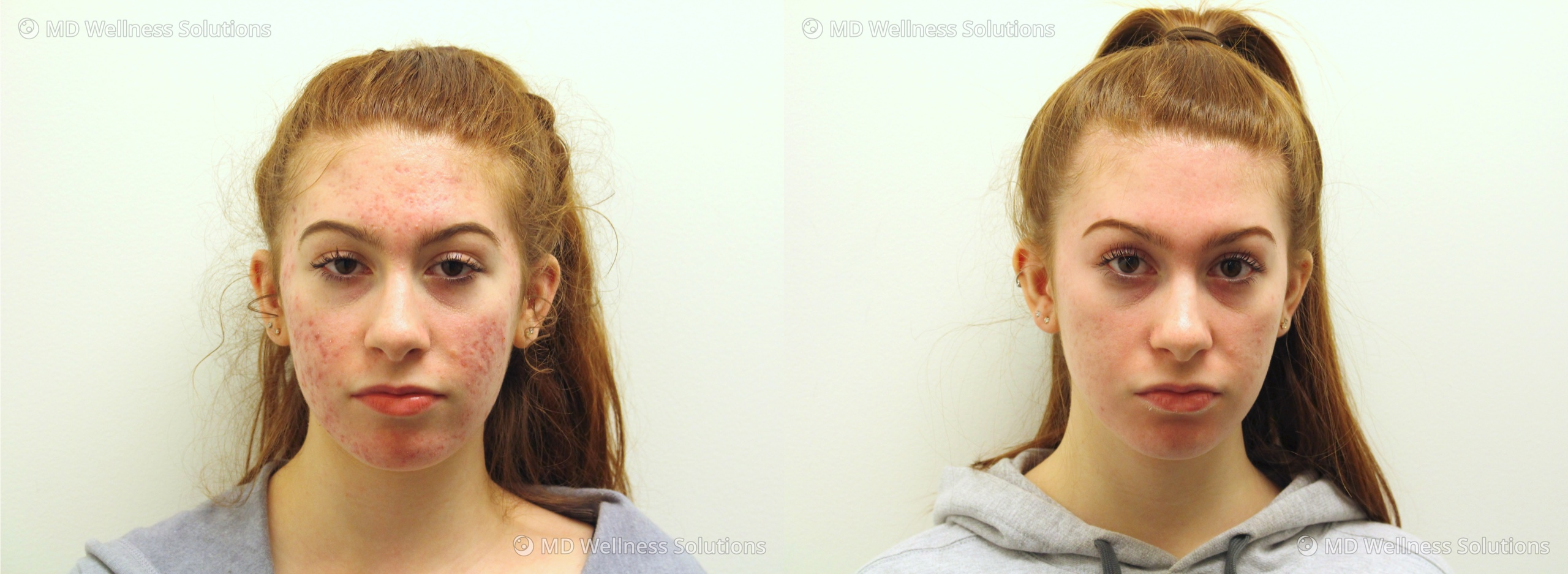 < 18 year old woman before and after acne treatment