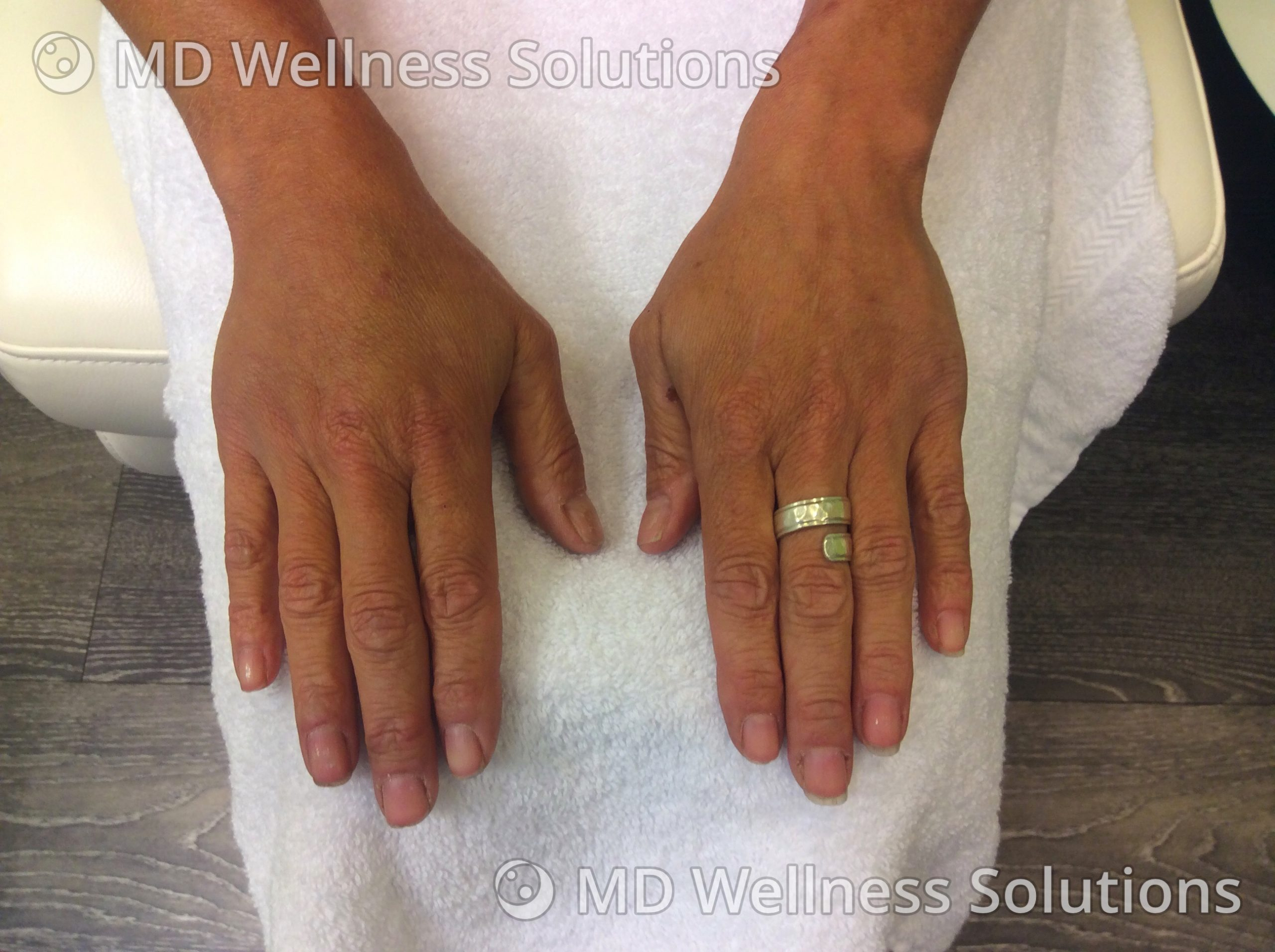 45-54 year old woman after hand filler treatment