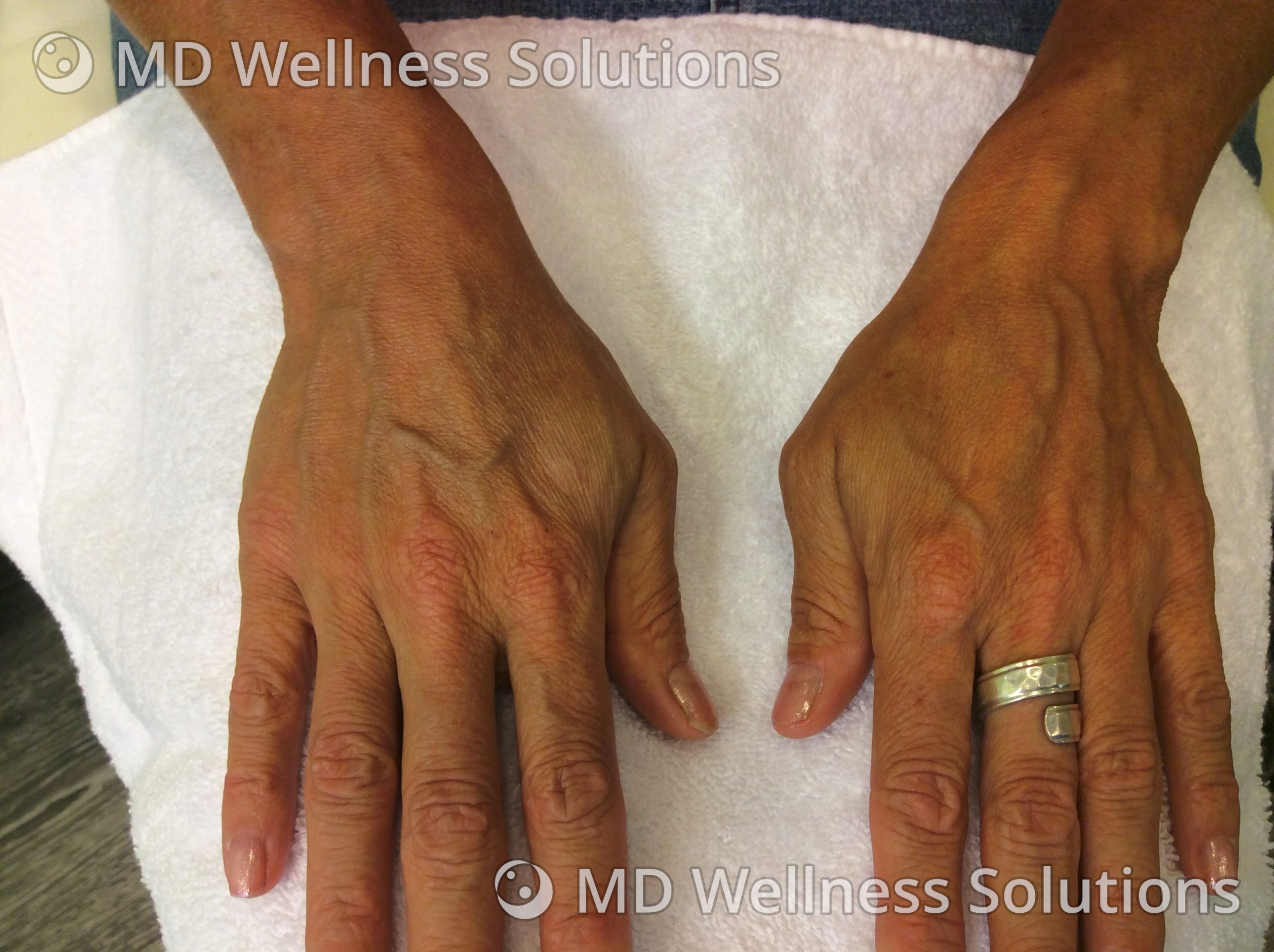 45-54 year old woman before hand filler treatment