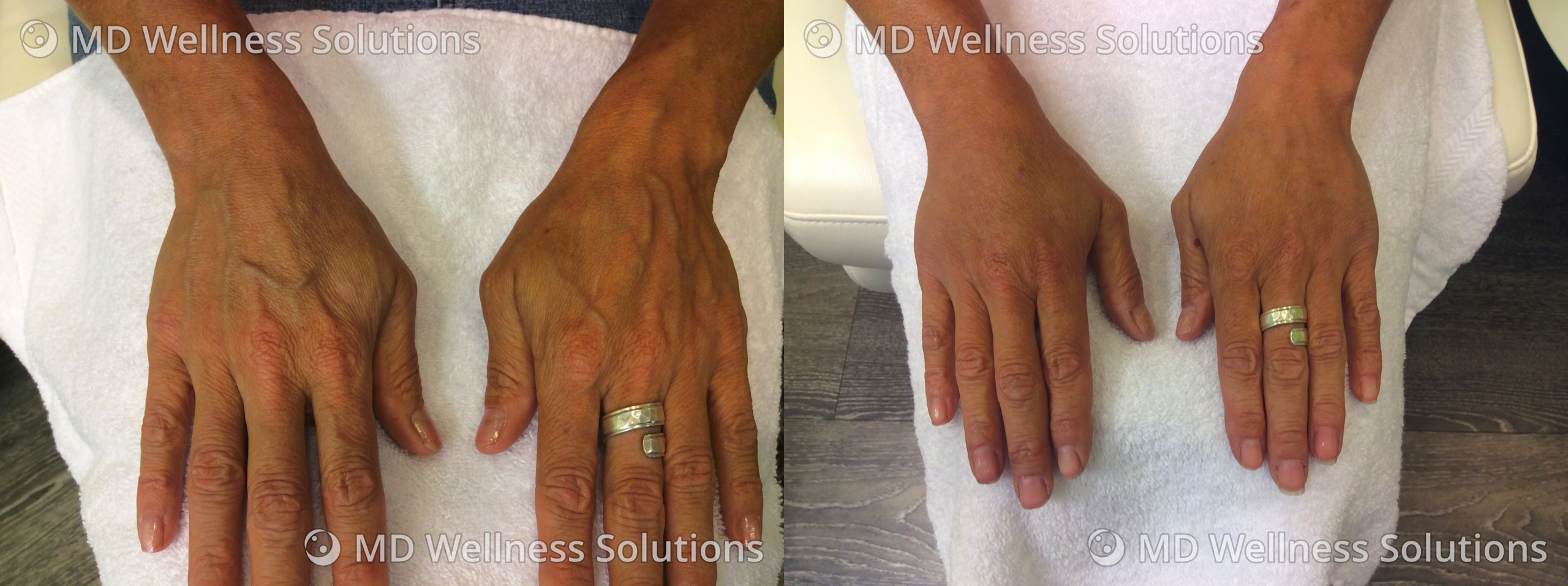 45-54 year old woman before and after hand filler treatment