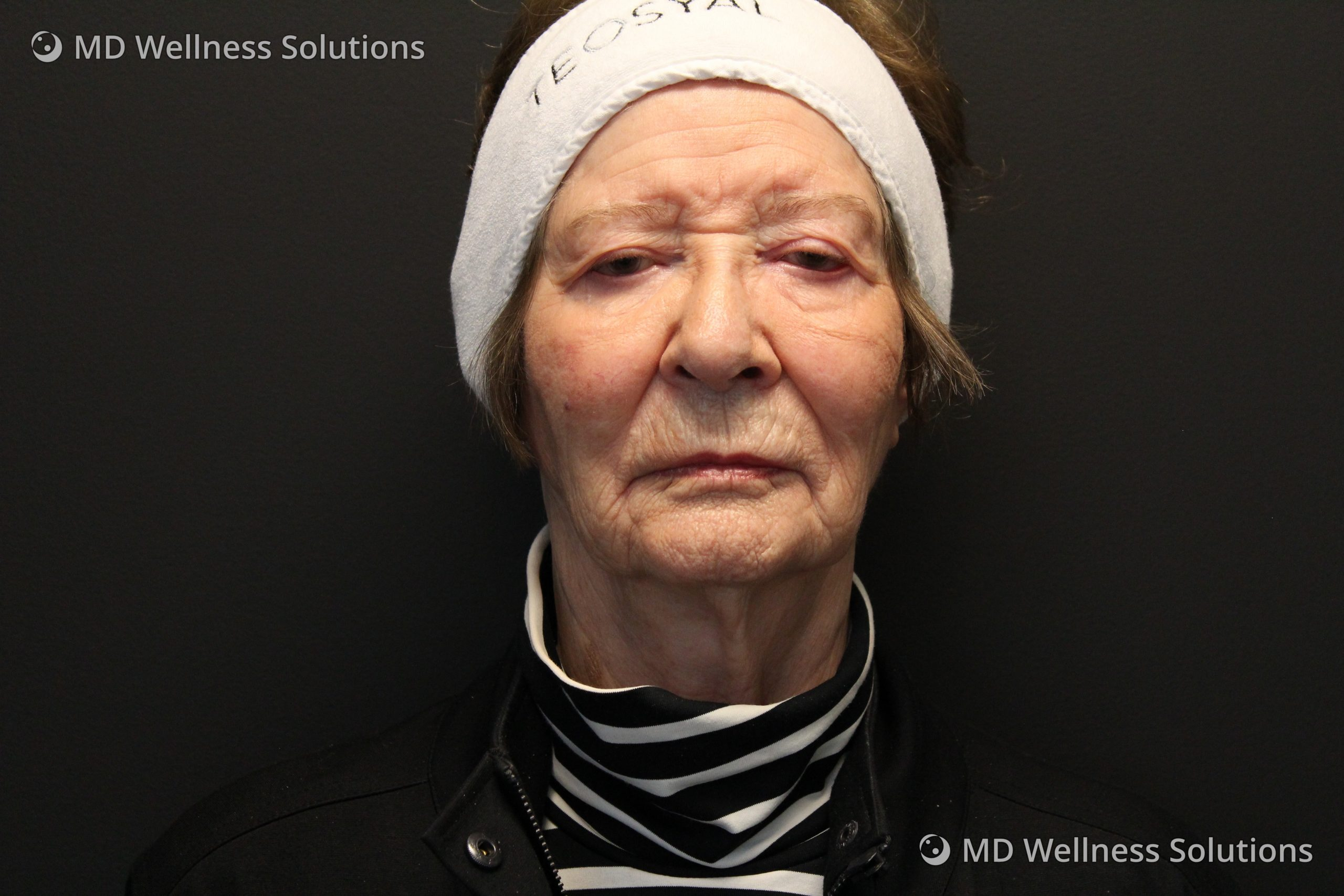 75+ year old woman after dermal filler treatment
