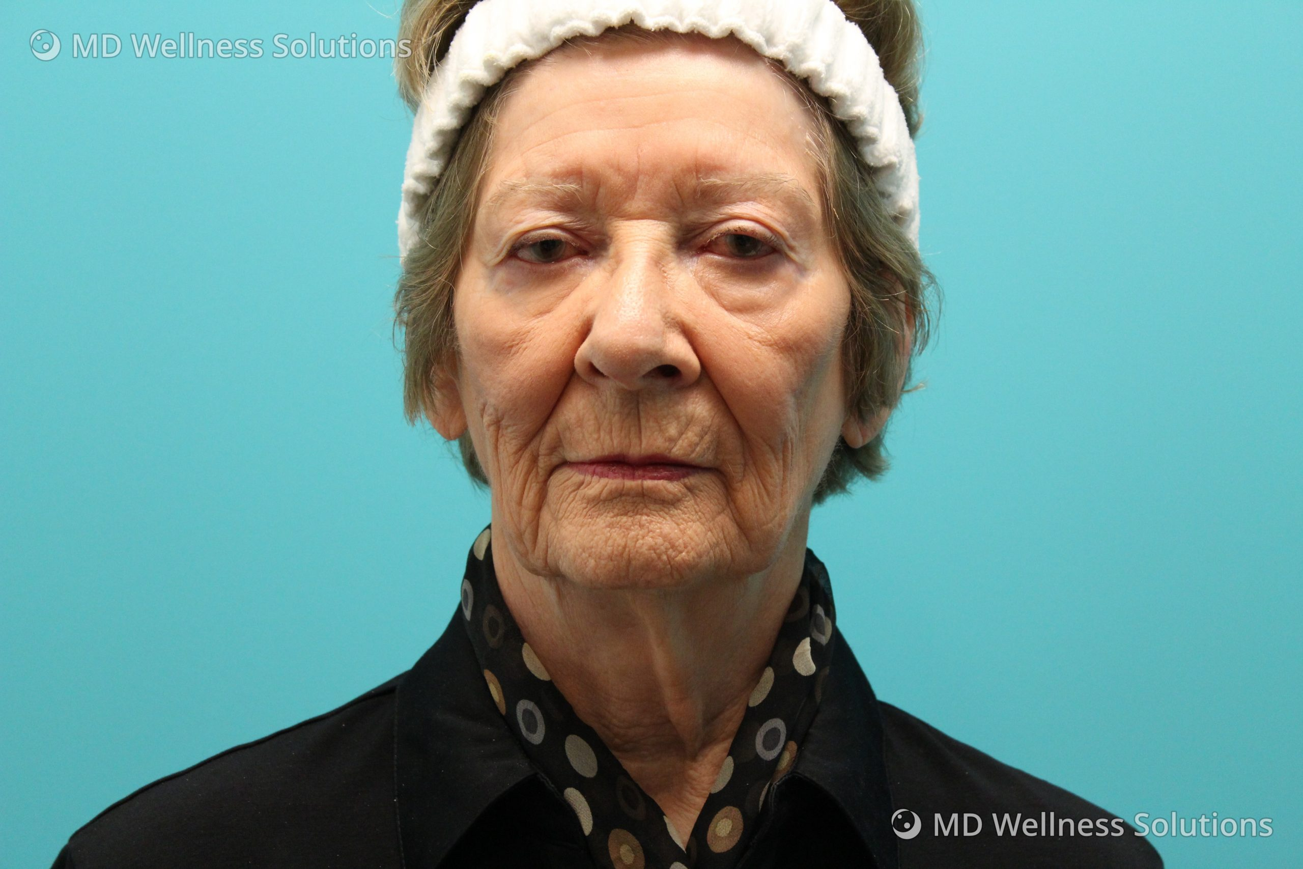 75+ year old woman before dermal filler treatment
