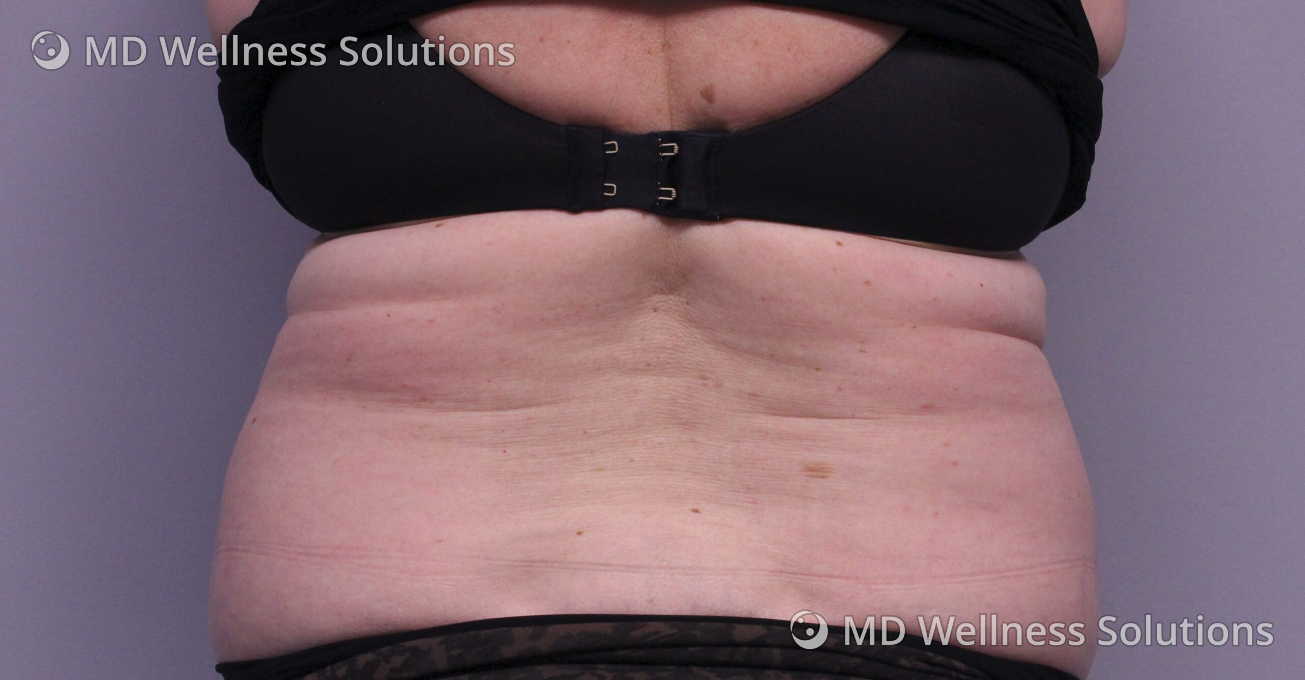 55-64 year old woman after FlexSure body contouring treatment